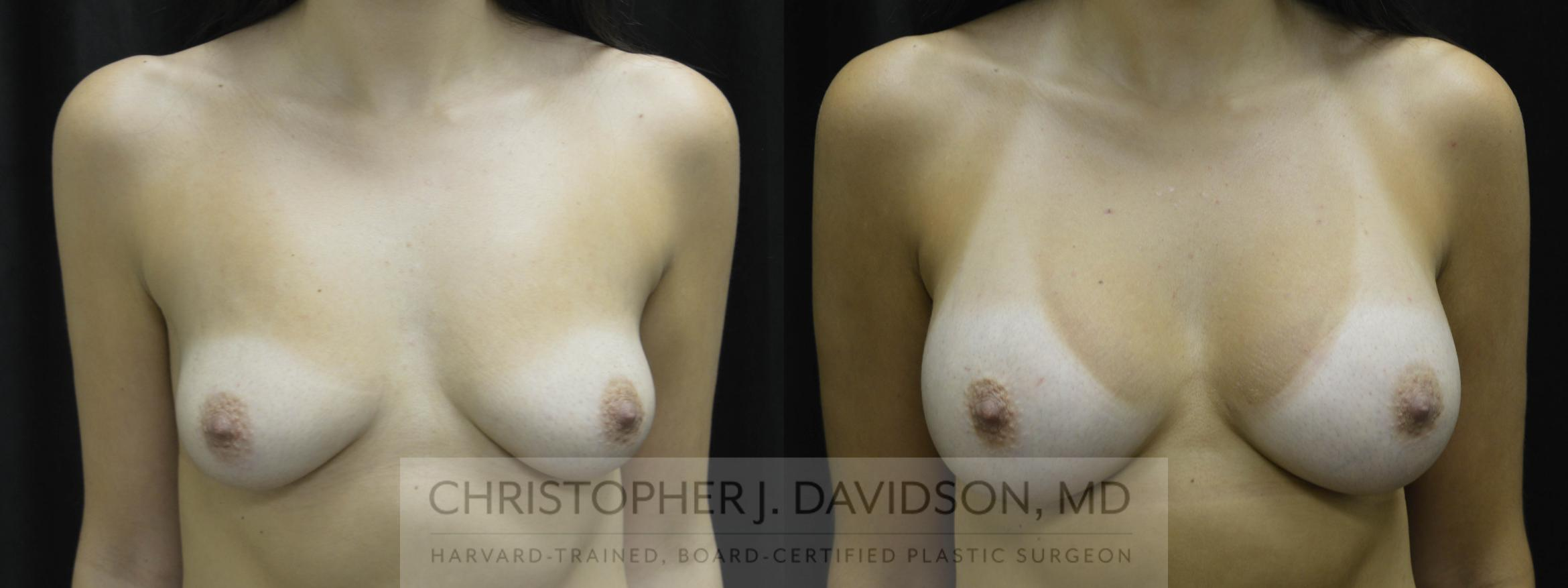 Breast Augmentation Case 19 Before & After View #1 | Boston, MA | Christopher J. Davidson, MD