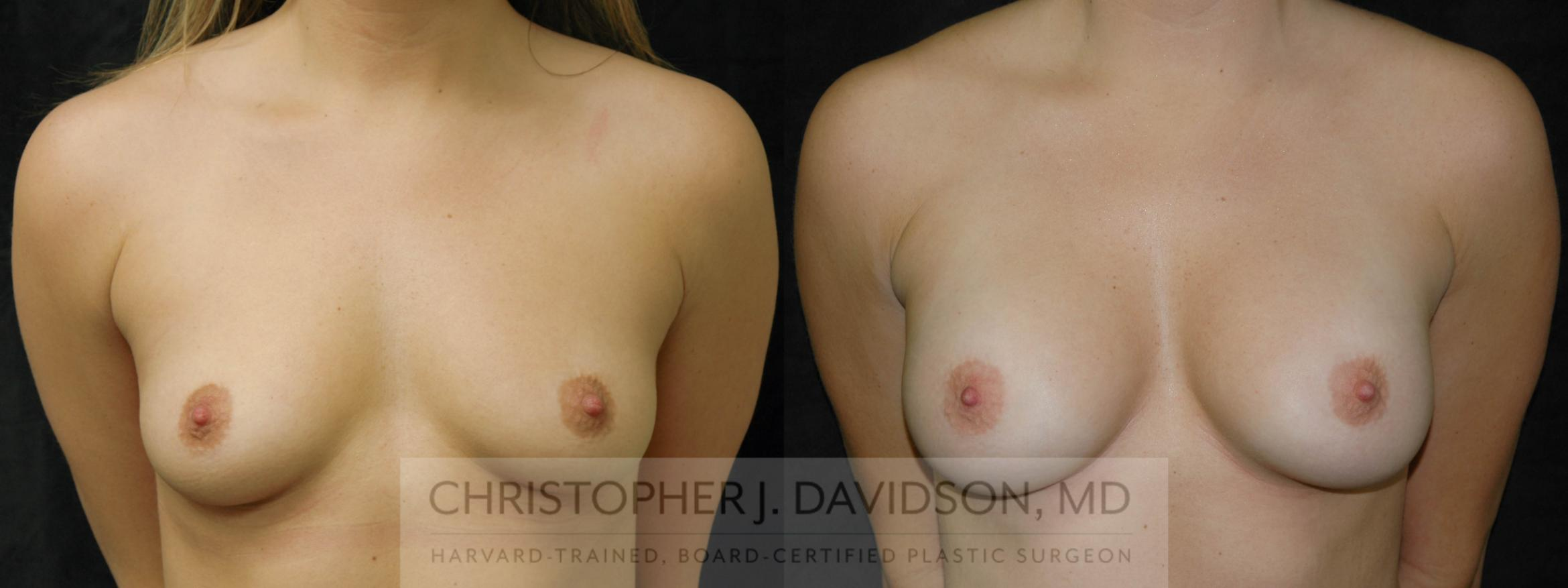 Breast Augmentation Case 190 Before & After View #1 | Boston, MA | Christopher J. Davidson, MD