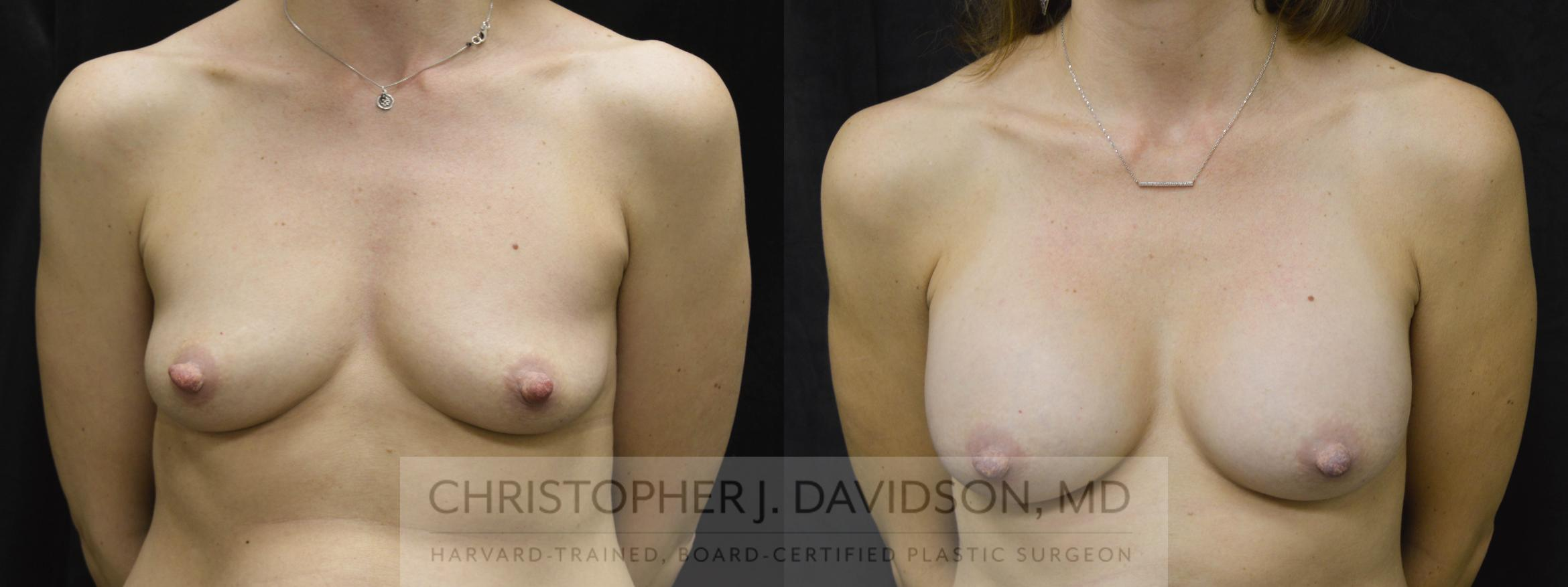 Breast Augmentation Case 28 Before & After View #1 | Wellesley, MA | Christopher J. Davidson, MD