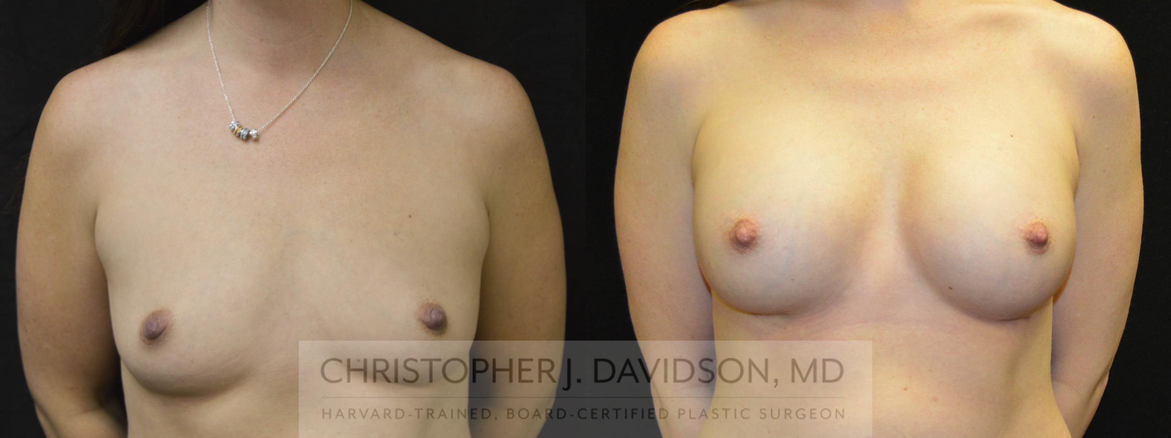 Breast Augmentation Case 29 Before & After View #1 | Wellesley, MA | Christopher J. Davidson, MD