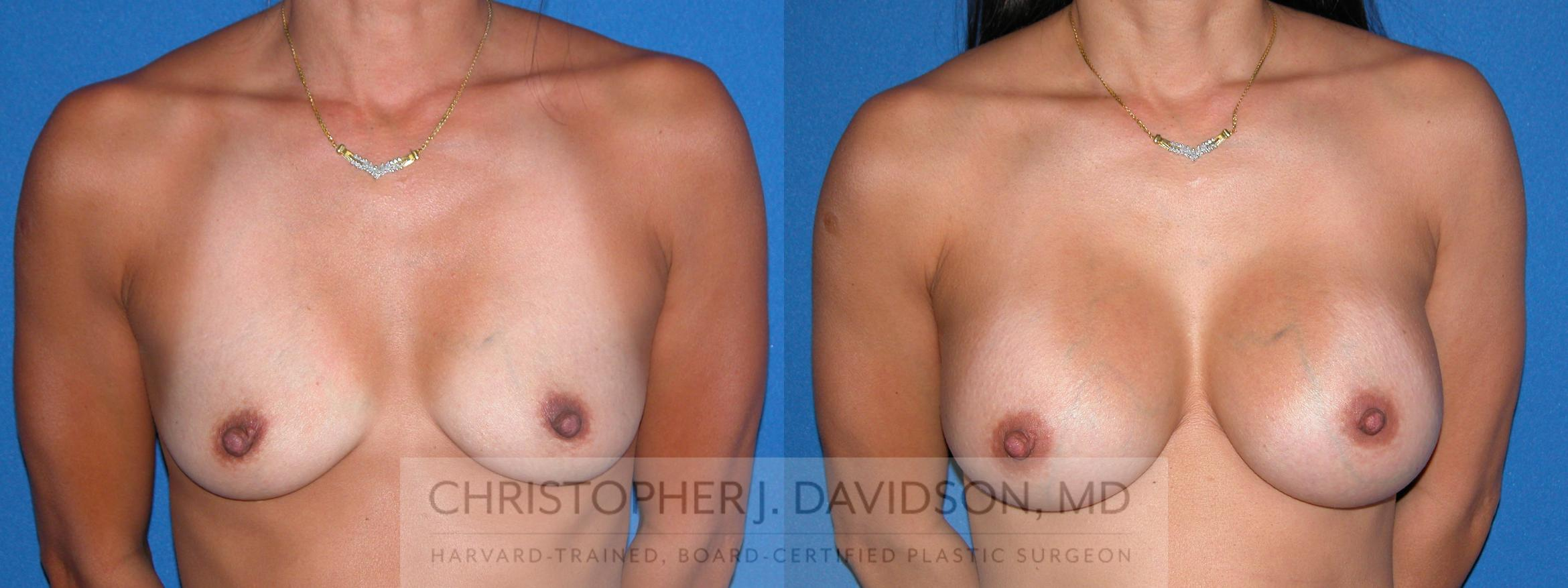Breast Augmentation Case 3 Before & After View #1 | Wellesley, MA | Christopher J. Davidson, MD