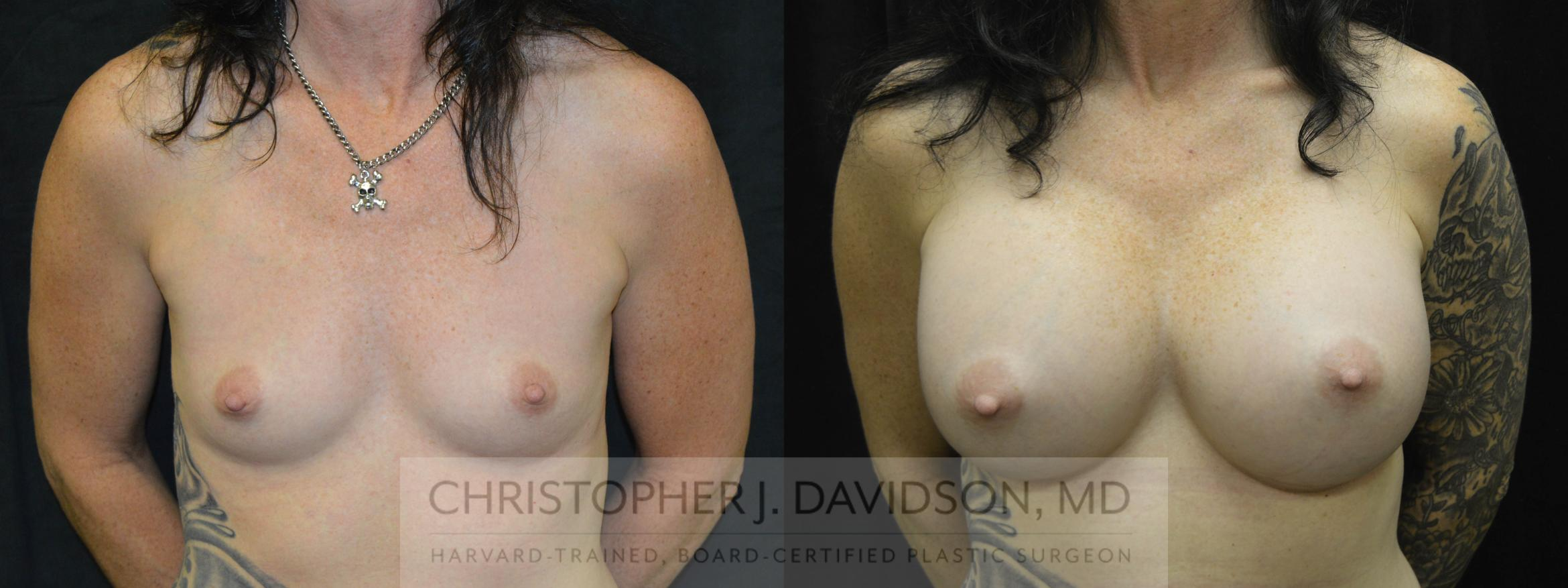Breast Augmentation Case 31 Before & After View #1 | Wellesley, MA | Christopher J. Davidson, MD