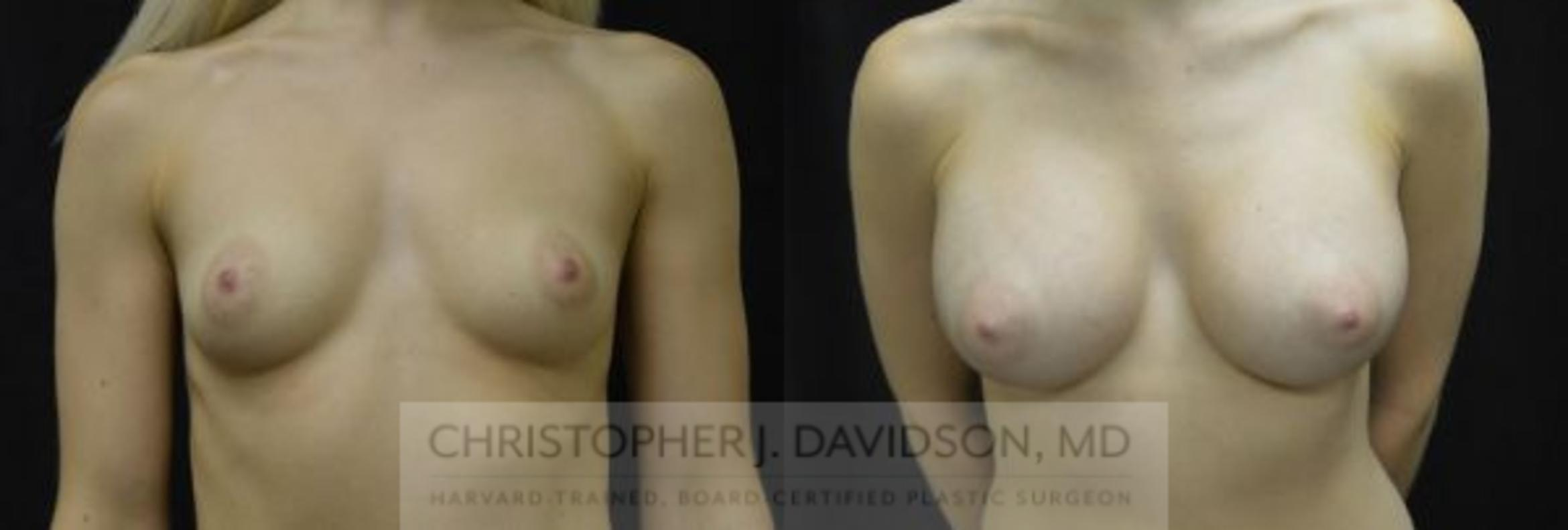 Breast Augmentation Case 4 Before & After View #1 | Wellesley, MA | Christopher J. Davidson, MD