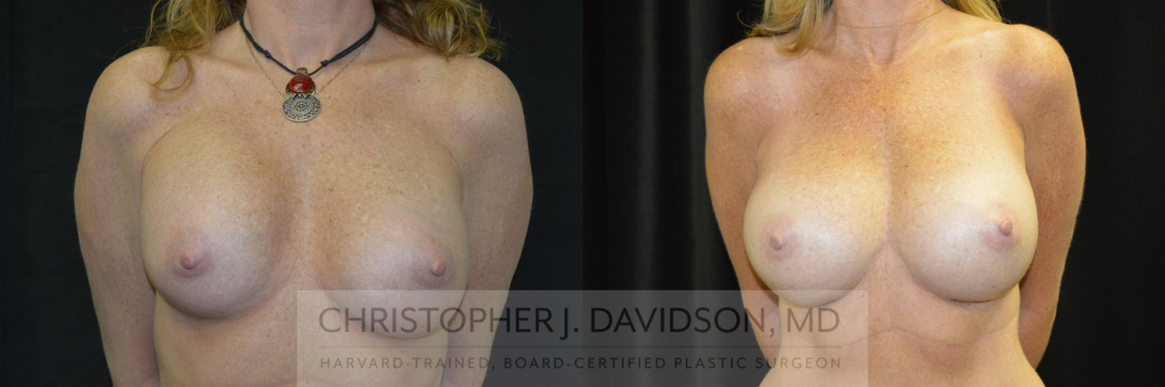 Breast Augmentation Revision Case 234 Before & After View #1 | Boston, MA | Christopher J. Davidson, MD