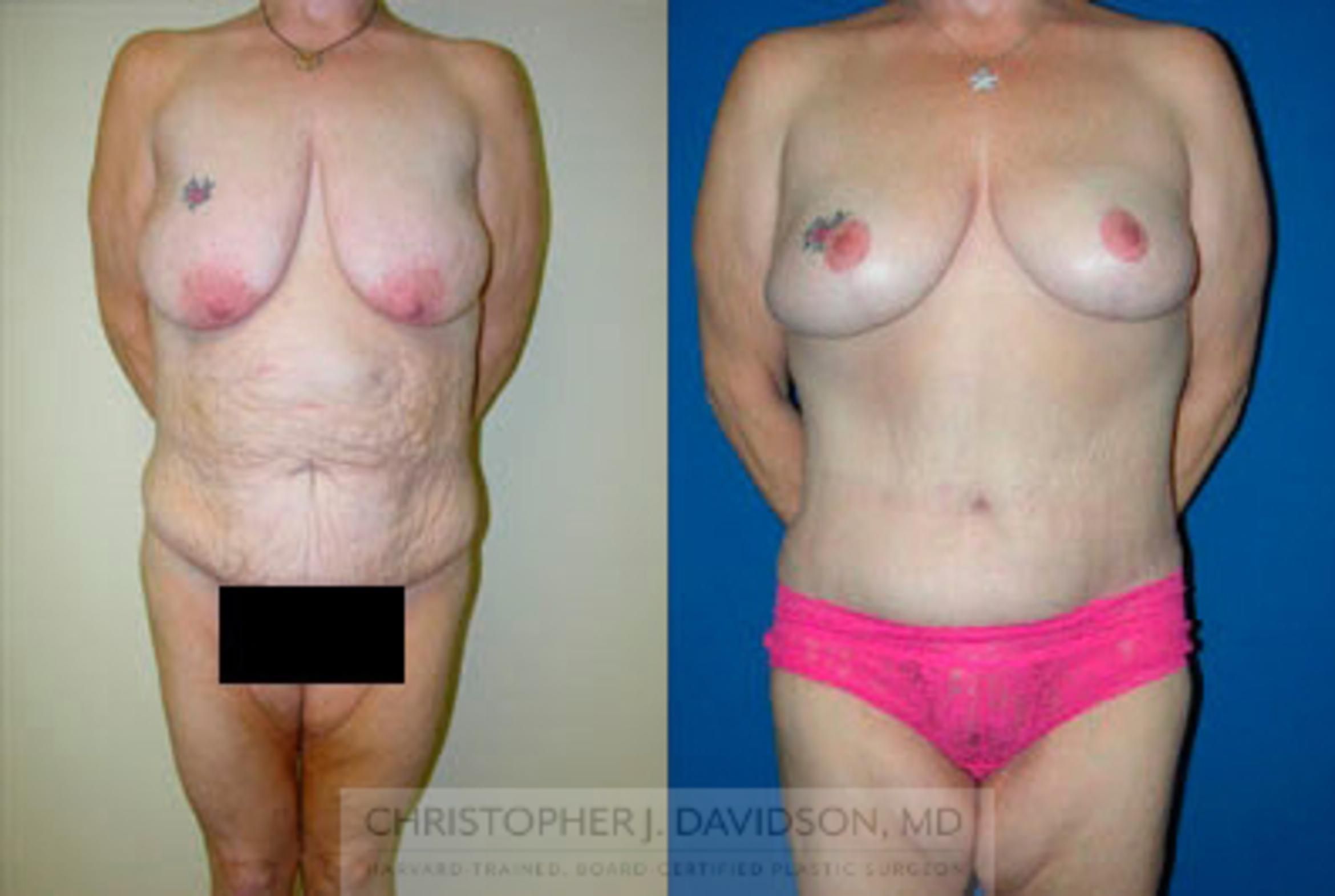 Breast Lift Case 5 Before & After View #1 | Boston, MA | Christopher J. Davidson, MD