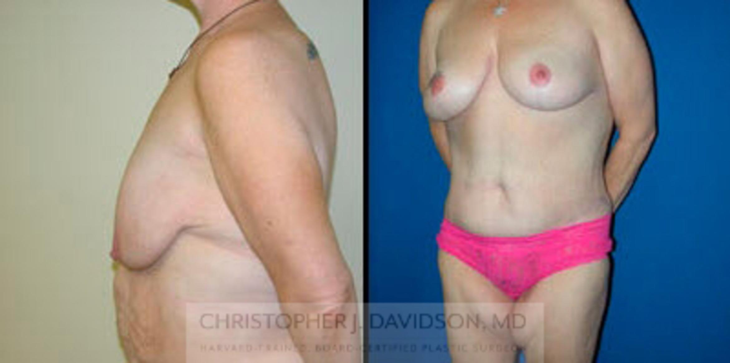 Breast Lift Case 5 Before & After View #2 | Boston, MA | Christopher J. Davidson, MD