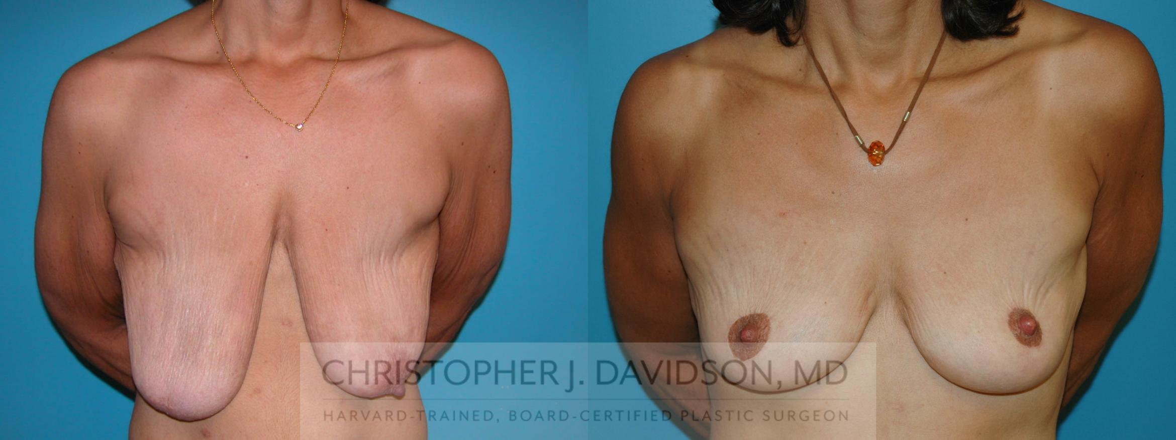Breast Lift Case 6 Before & After View #1 | Boston, MA | Christopher J. Davidson, MD