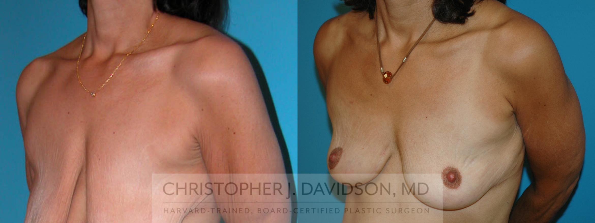 Breast Lift Case 6 Before & After View #2 | Boston, MA | Christopher J. Davidson, MD