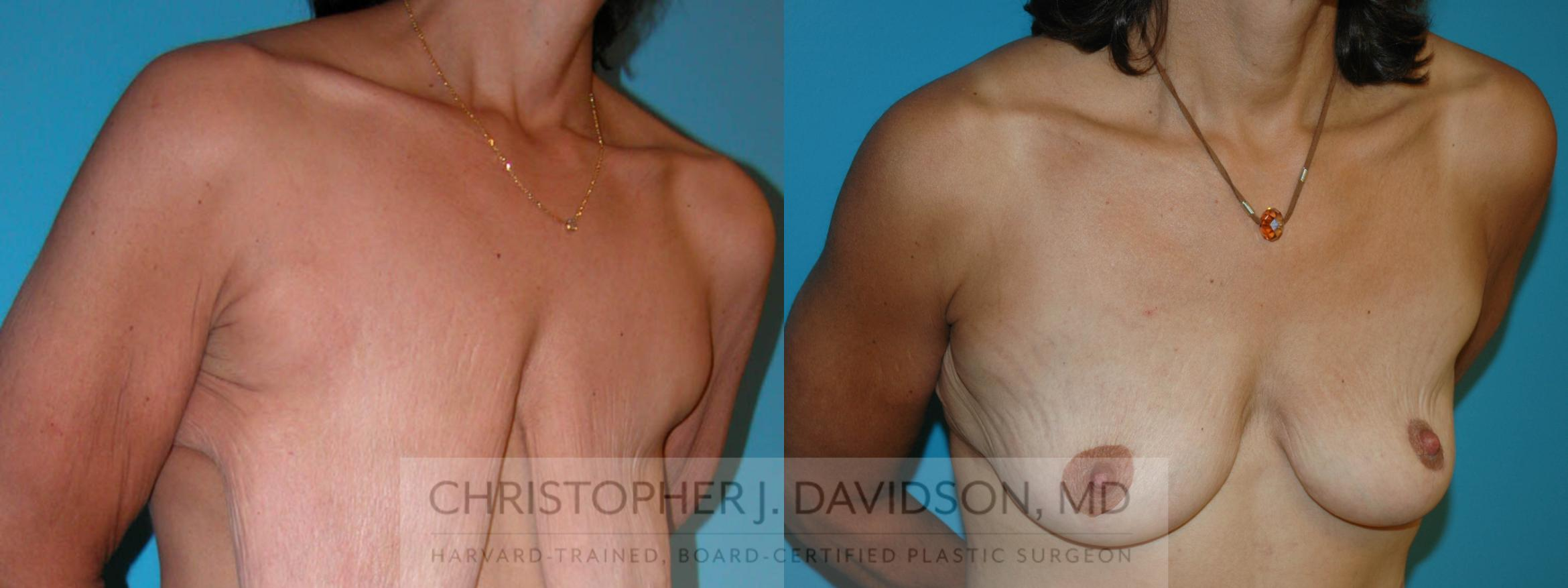 Breast Lift Case 6 Before & After View #3 | Boston, MA | Christopher J. Davidson, MD
