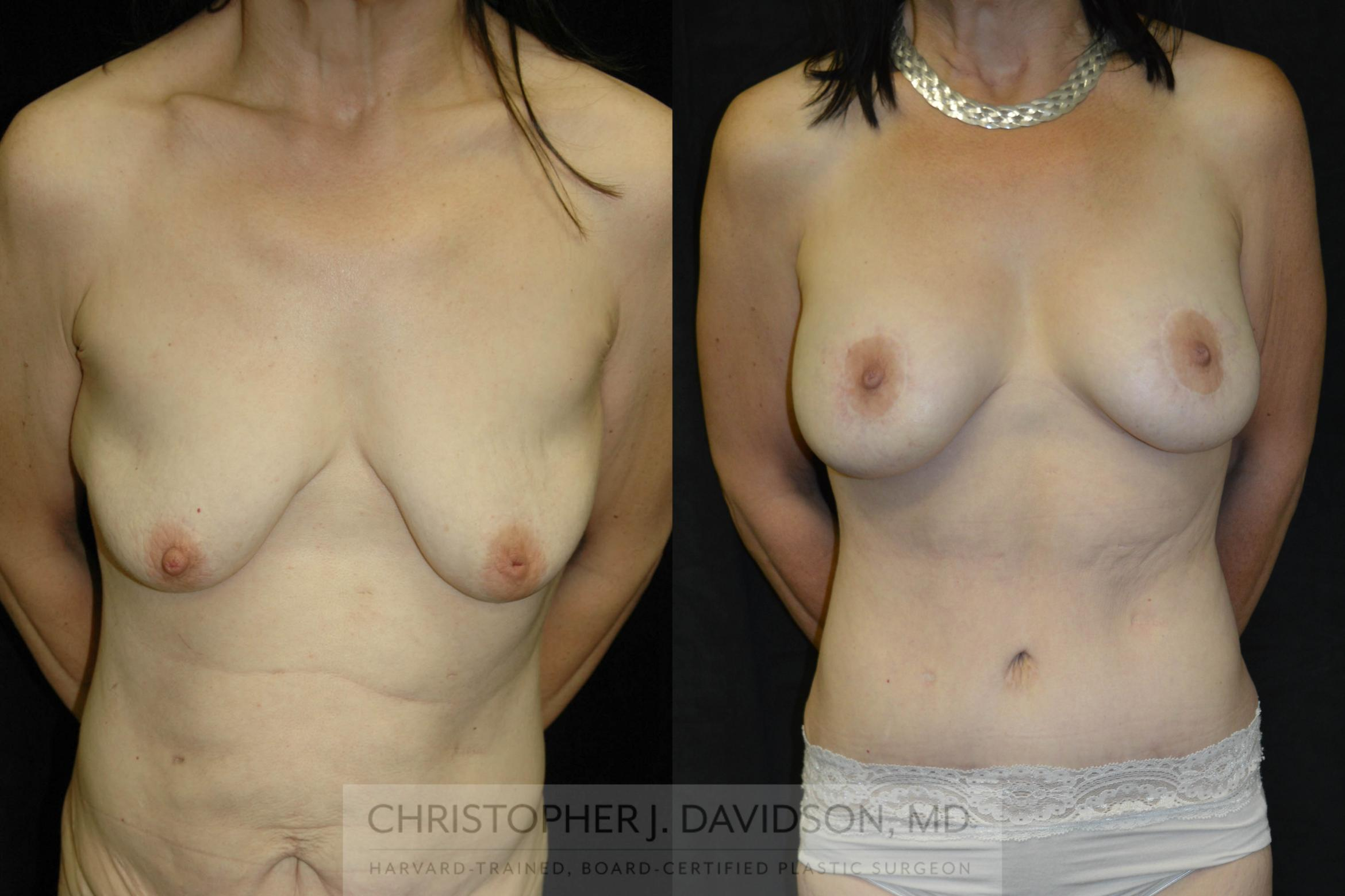 Breast Lift with Implants Case 15 Before & After View #1 | Wellesley, MA | Christopher J. Davidson, MD