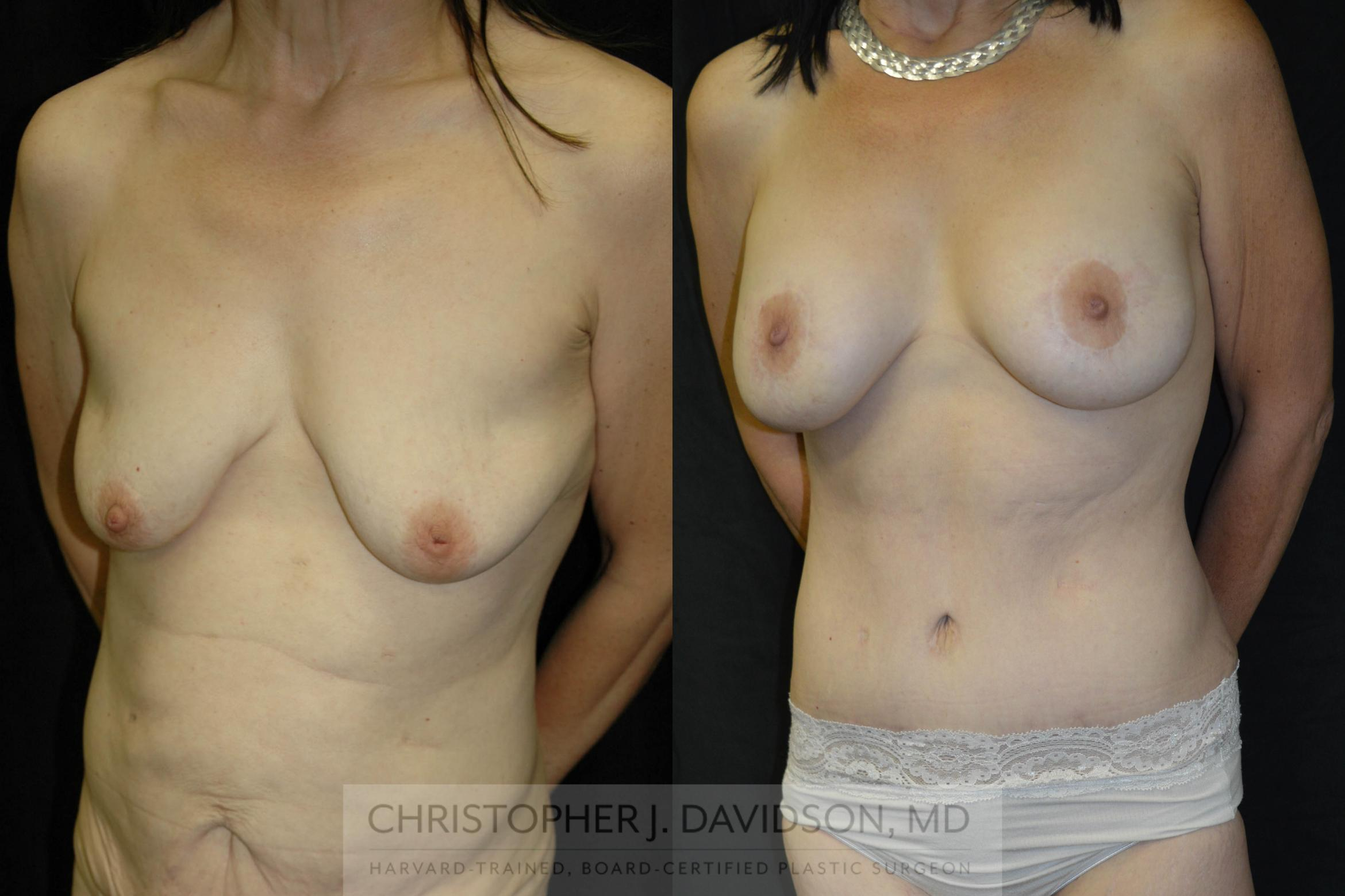 Breast Lift with Implants Case 15 Before & After View #2 | Wellesley, MA | Christopher J. Davidson, MD