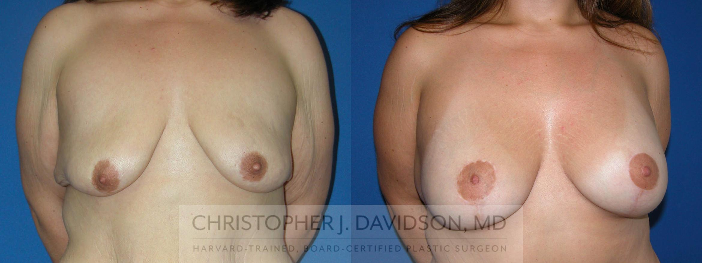 Breast Lift with Implants Case 187 Before & After View #1 | Wellesley, MA | Christopher J. Davidson, MD