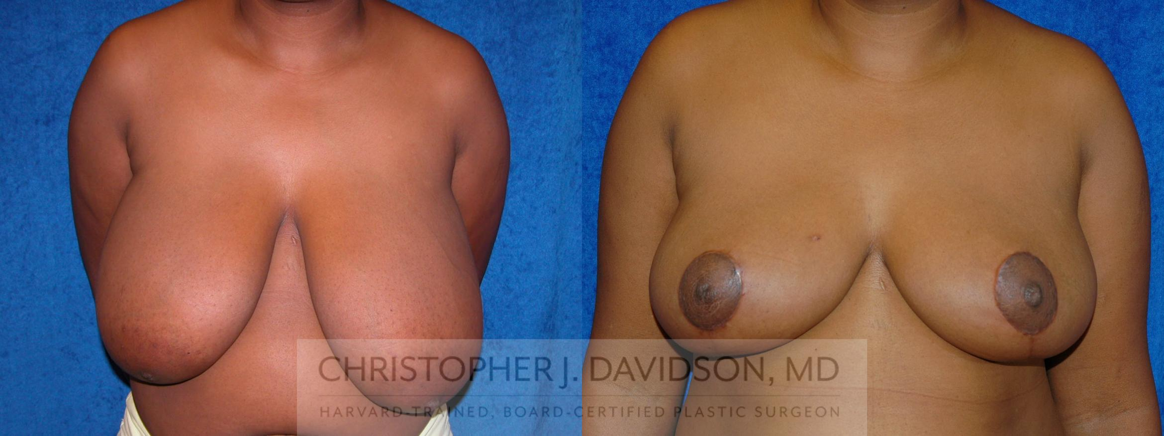 Breast Reduction Case 191 Before & After View #1 | Boston, MA | Christopher J. Davidson, MD