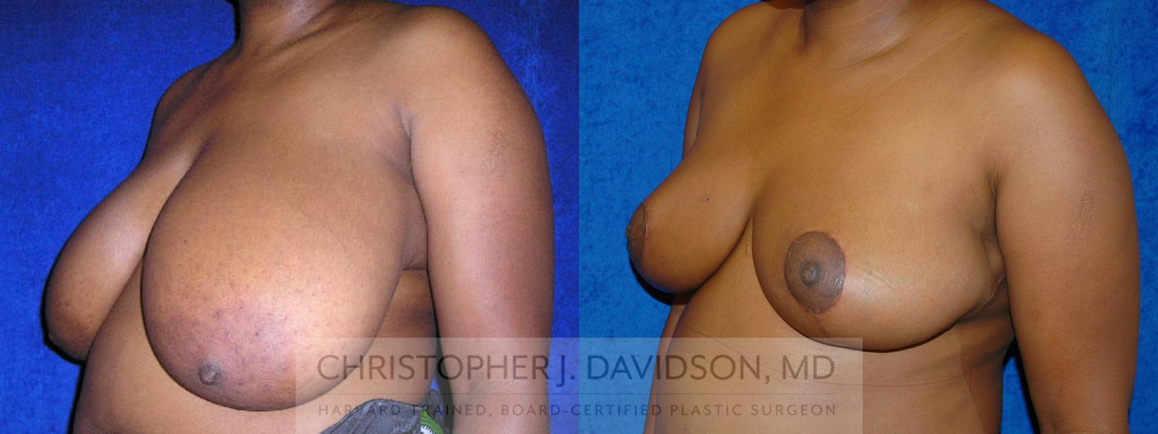Breast Reduction Case 191 Before & After View #2 | Boston, MA | Christopher J. Davidson, MD
