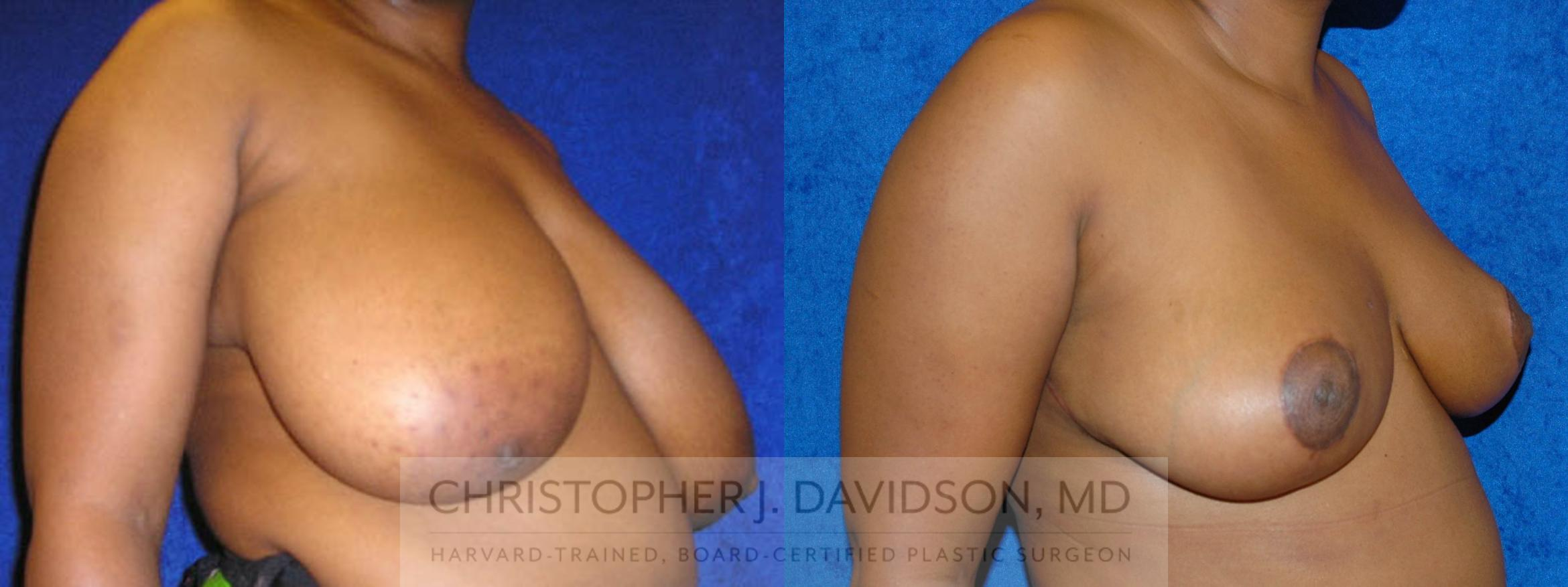 Breast Reduction Case 191 Before & After View #3 | Boston, MA | Christopher J. Davidson, MD