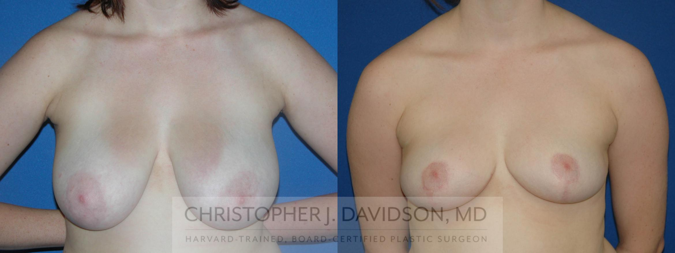 Breast Reduction Case 50 Before & After View #1 | Wellesley, MA | Christopher J. Davidson, MD