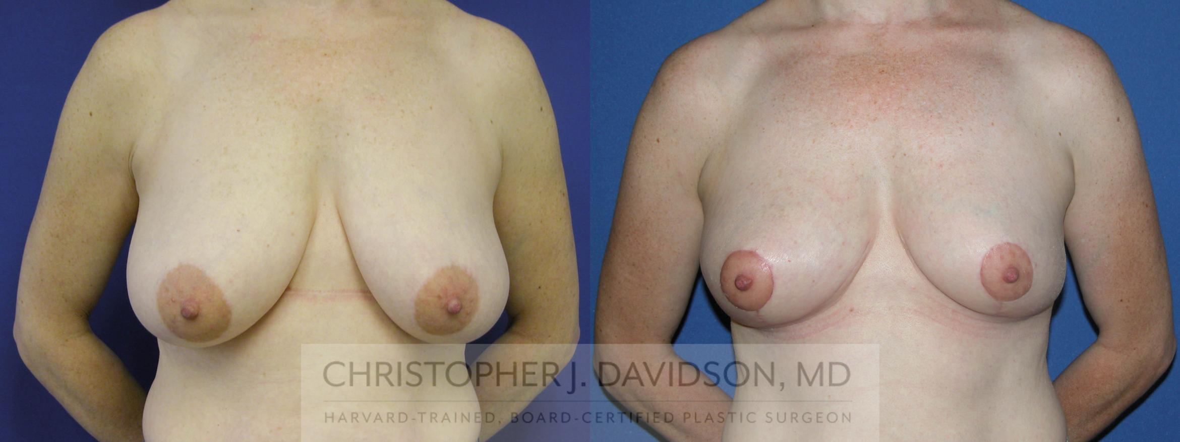 Breast Reduction Case 99 Before & After View #1 | Boston, MA | Christopher J. Davidson, MD