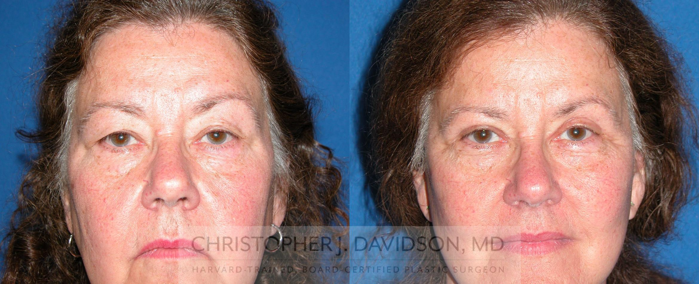 Eyelid Surgery Case 211 Before & After View #1 | Wellesley, MA | Christopher J. Davidson, MD