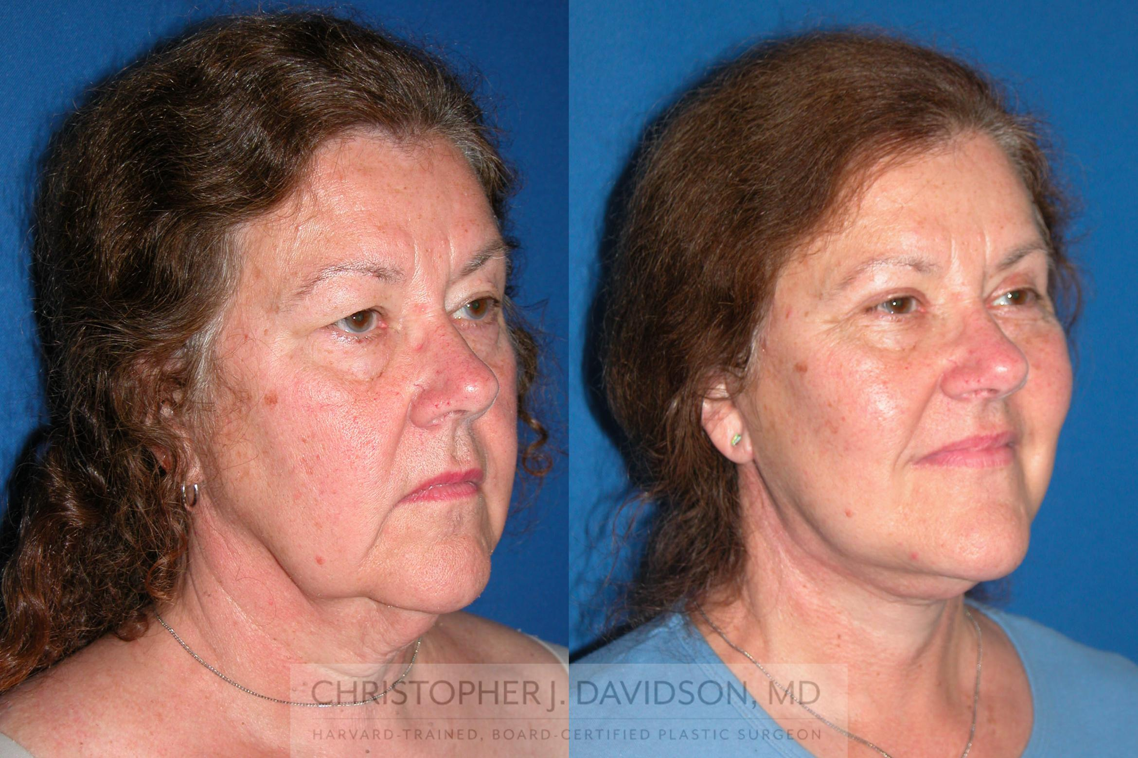 Facelift Surgery Case 210 Before & After View #2 | Boston, MA | Christopher J. Davidson, MD
