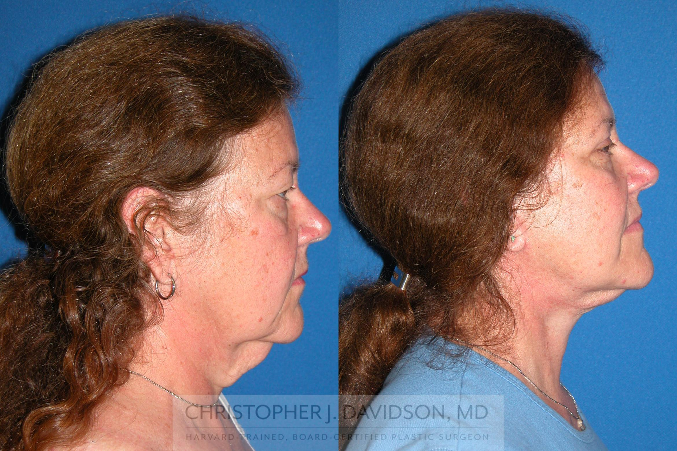 Facelift Surgery Case 210 Before & After View #3 | Boston, MA | Christopher J. Davidson, MD