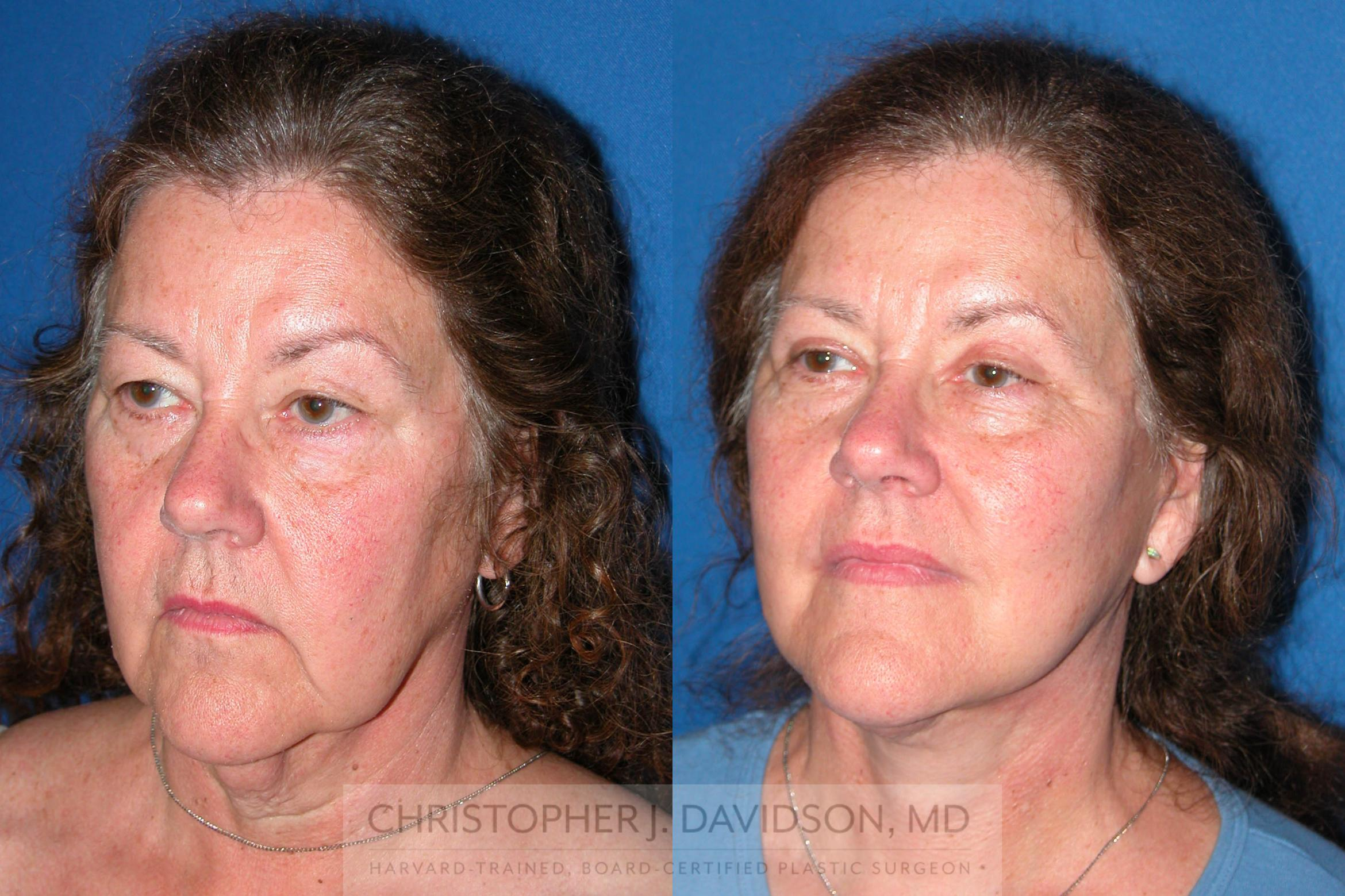 Facelift Surgery Case 210 Before & After View #4 | Boston, MA | Christopher J. Davidson, MD