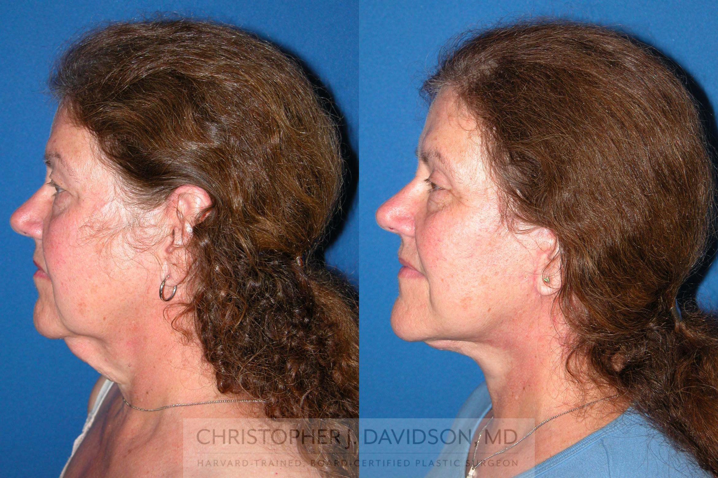 Facelift Surgery Case 210 Before & After View #5 | Boston, MA | Christopher J. Davidson, MD