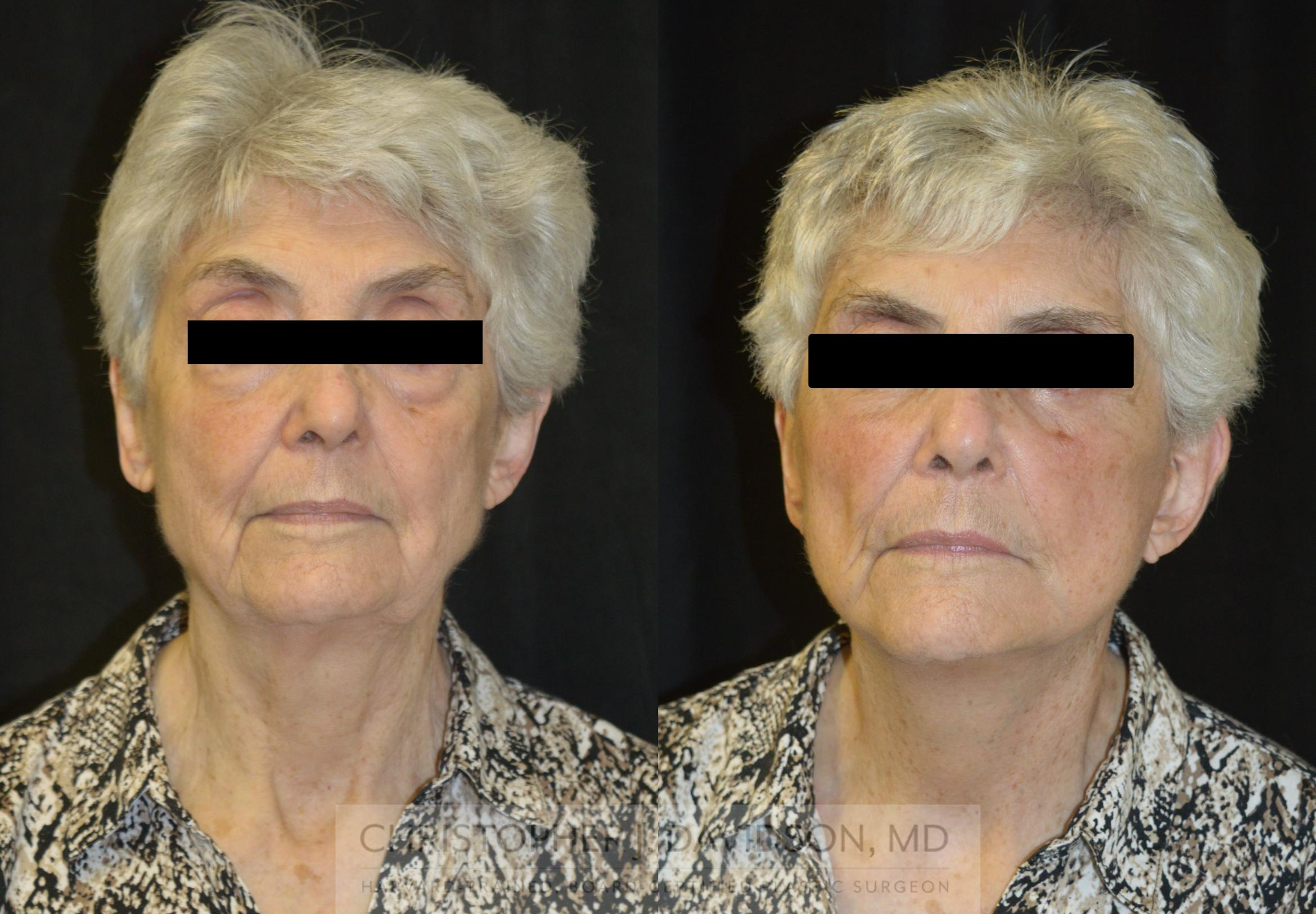 Facelift Surgery Case 233 Before & After View #1 | Boston, MA | Christopher J. Davidson, MD