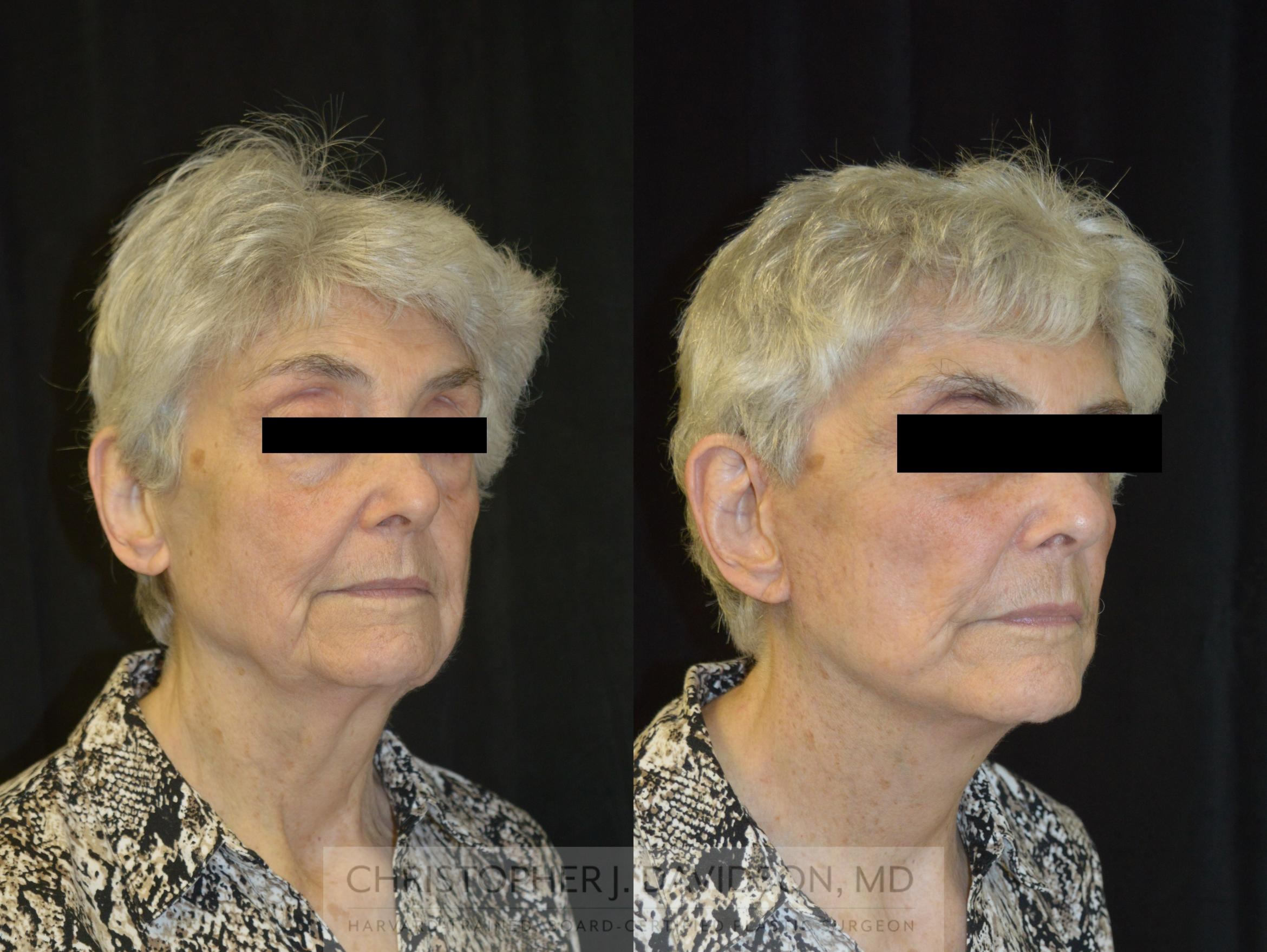 Facelift Surgery Case 233 Before & After View #2 | Wellesley, MA | Christopher J. Davidson, MD