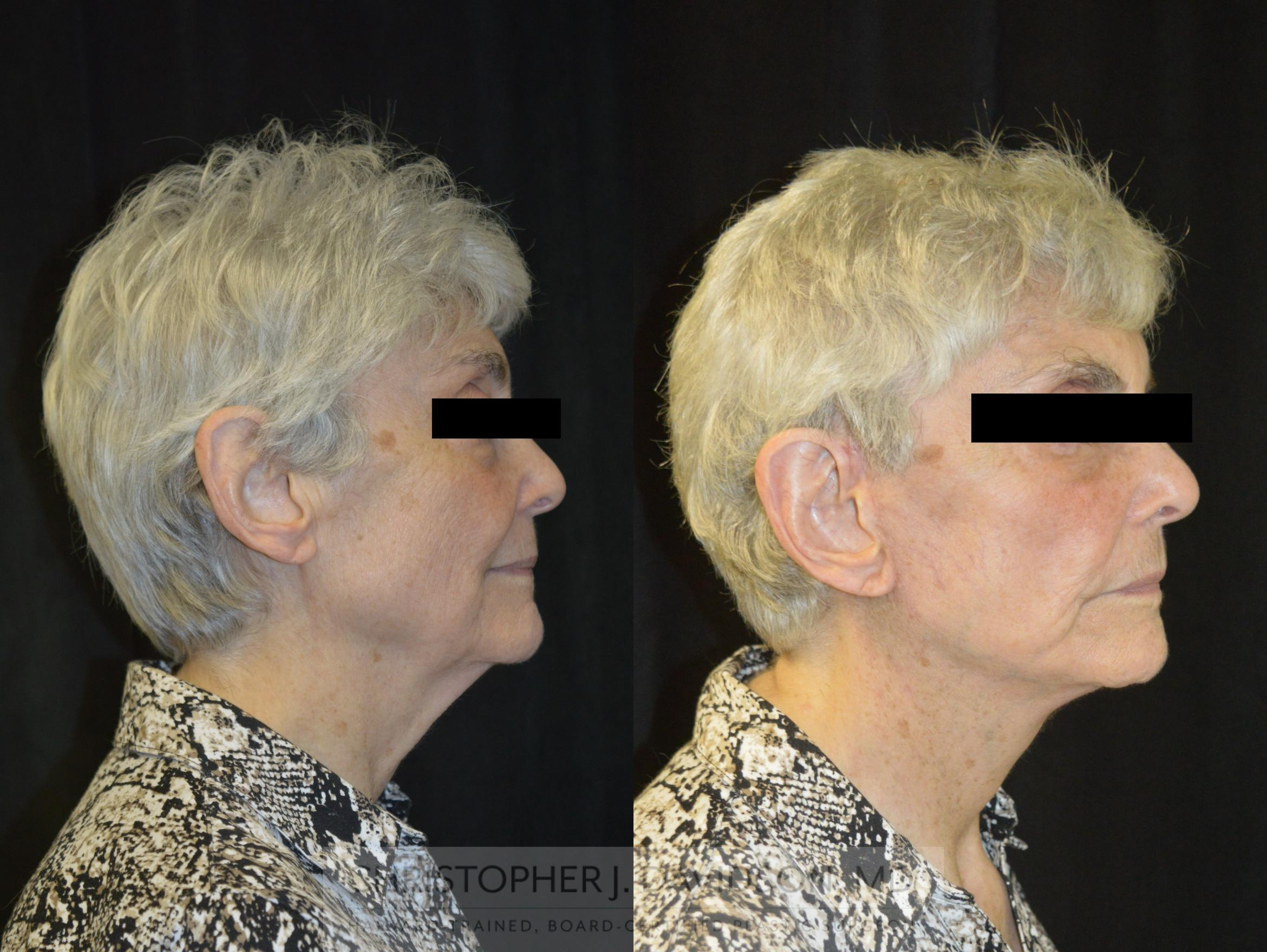 Facelift Surgery Case 233 Before & After View #3 | Wellesley, MA | Christopher J. Davidson, MD