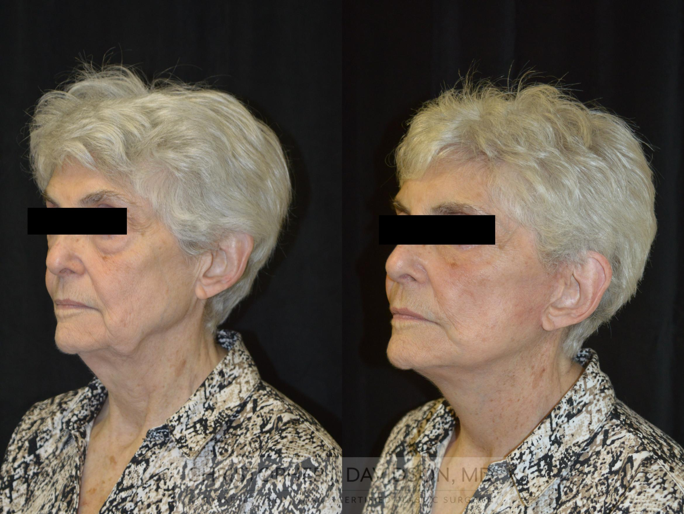 Facelift Surgery Case 233 Before & After View #4 | Boston, MA | Christopher J. Davidson, MD
