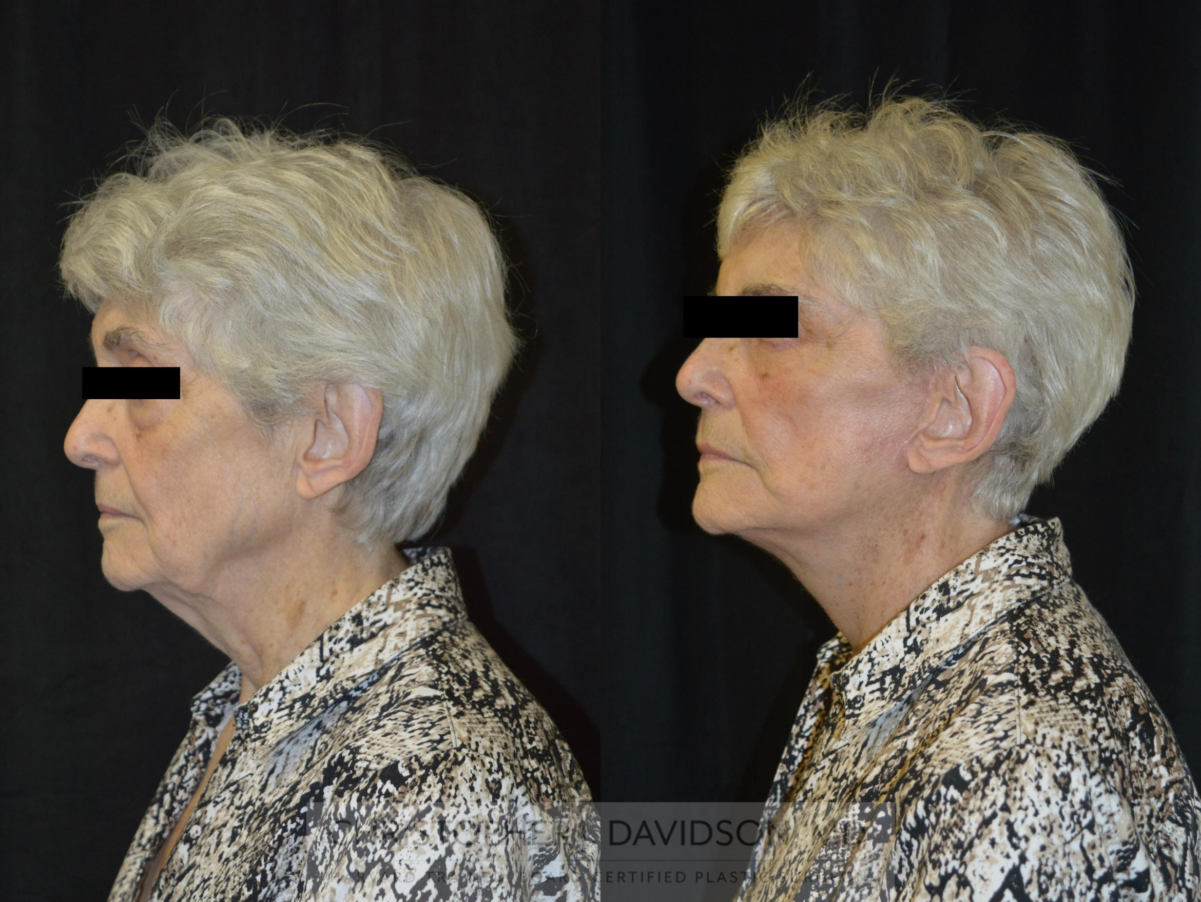 Facelift Surgery Case 233 Before & After View #5 | Wellesley, MA | Christopher J. Davidson, MD