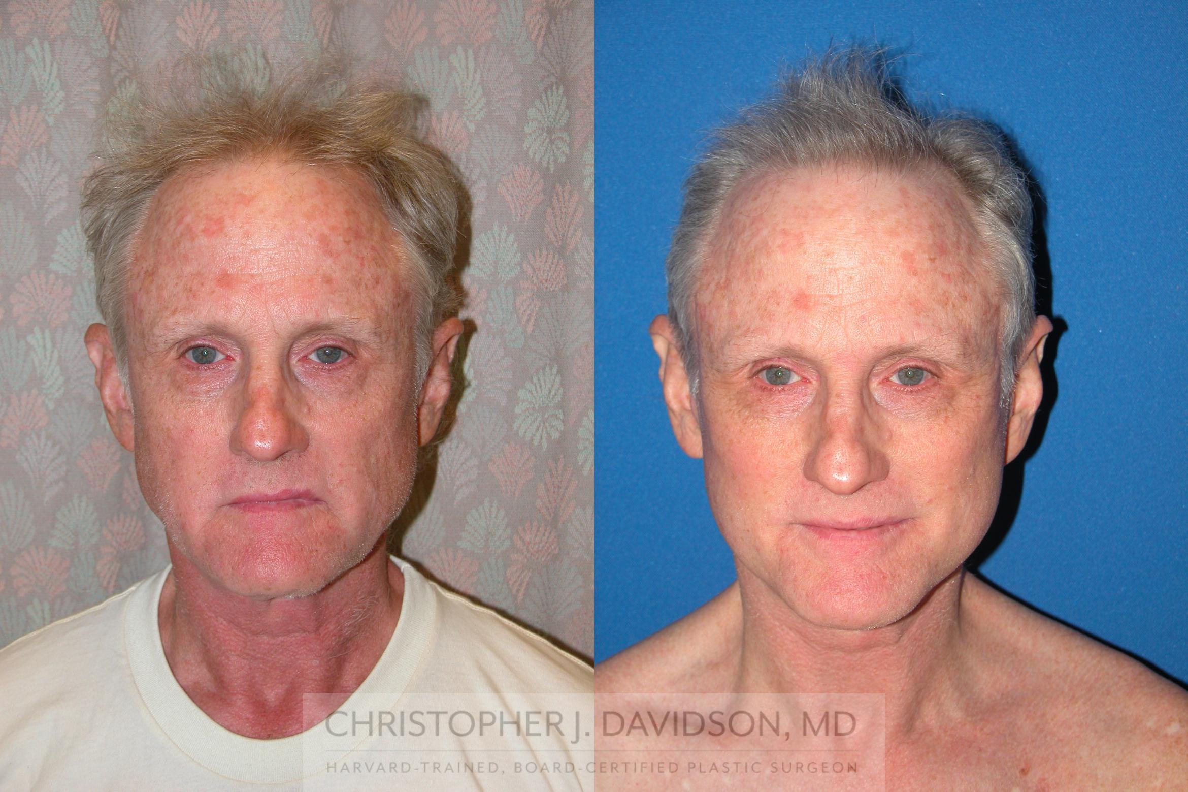 Facelift Surgery Case 235 Before & After View #1 | Wellesley, MA | Christopher J. Davidson, MD