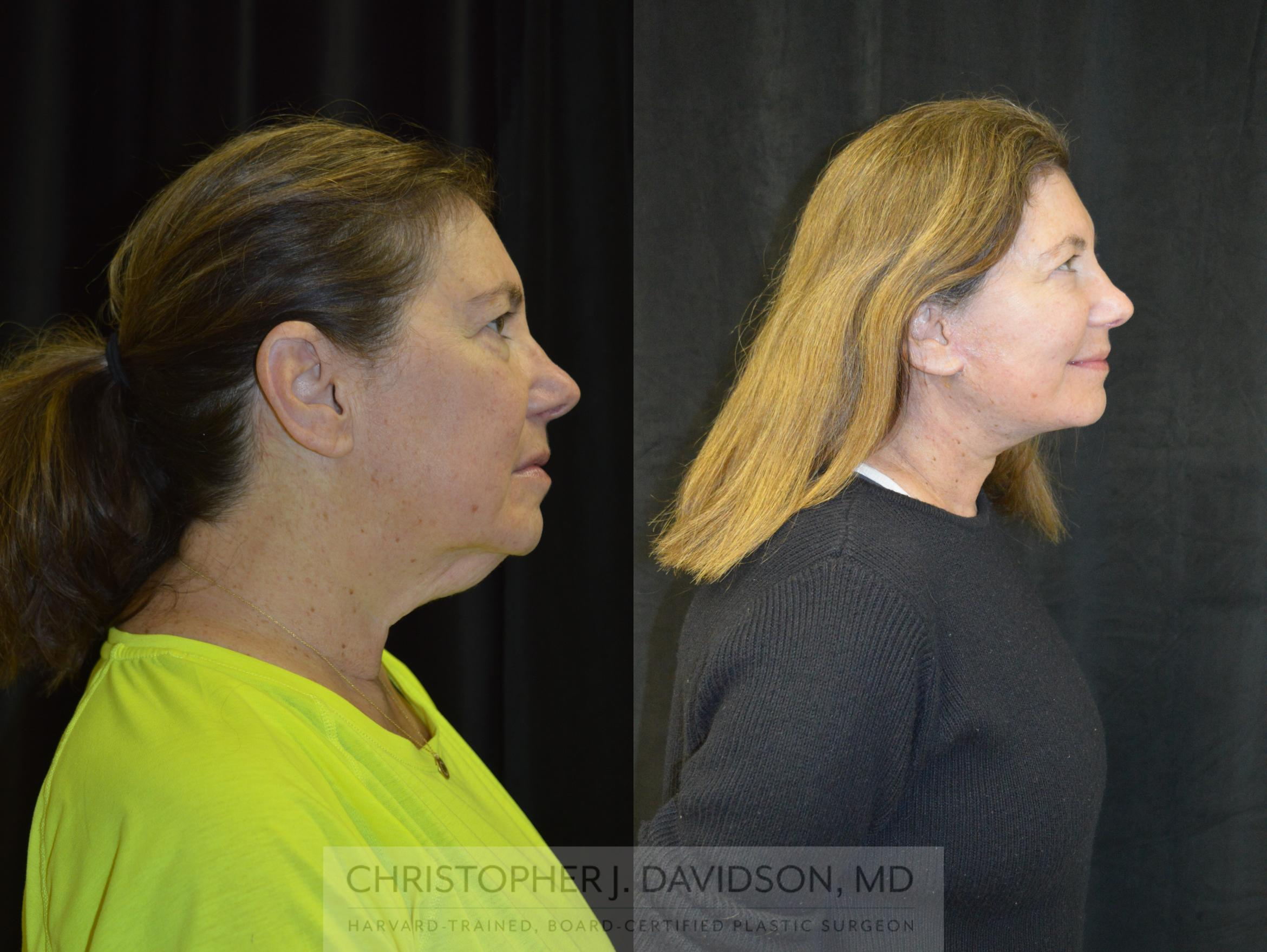 Facelift Surgery Case 237 Before & After View #3 | Wellesley, MA | Christopher J. Davidson, MD