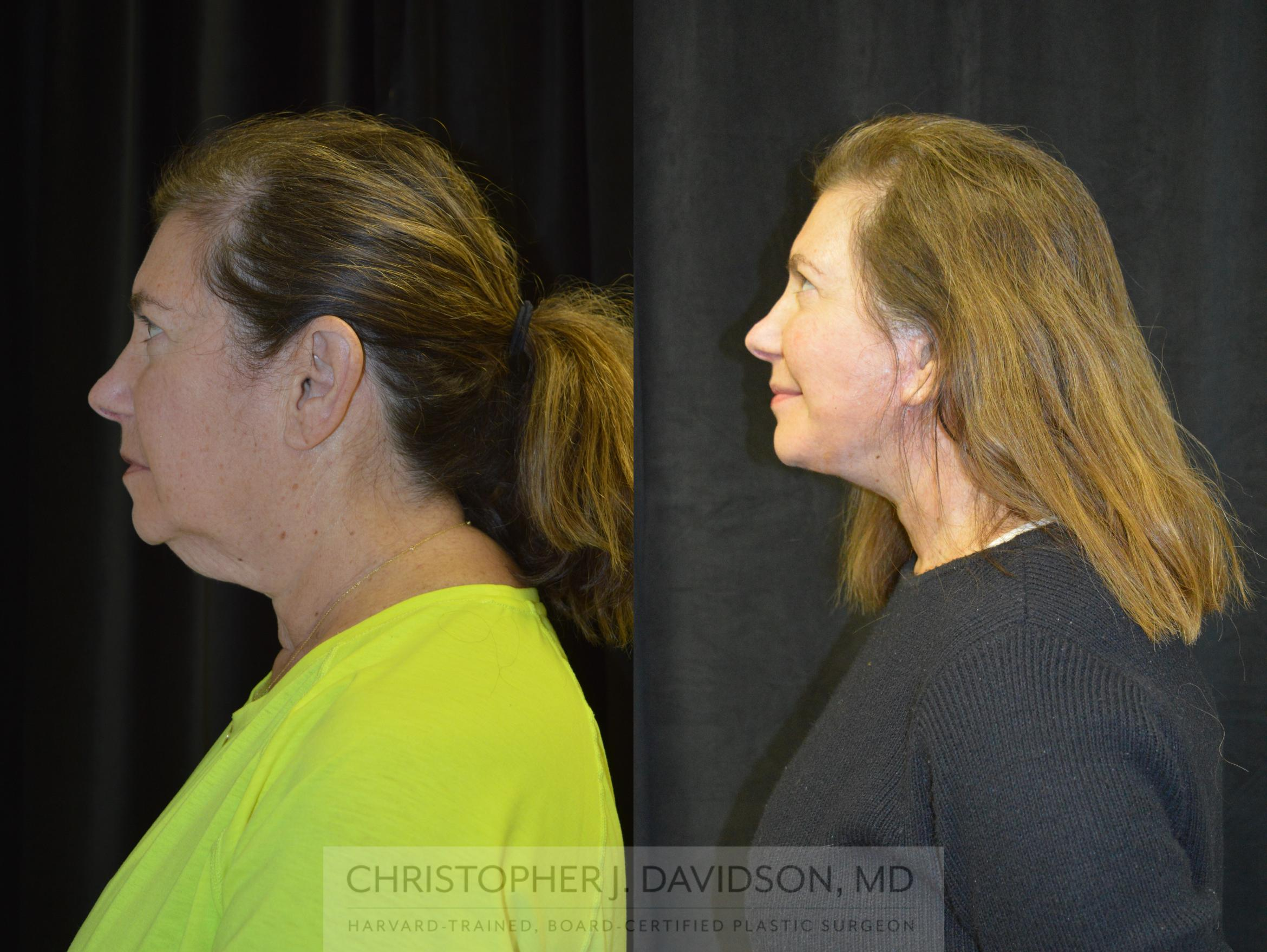 Facelift Surgery Case 237 Before & After View #5 | Wellesley, MA | Christopher J. Davidson, MD