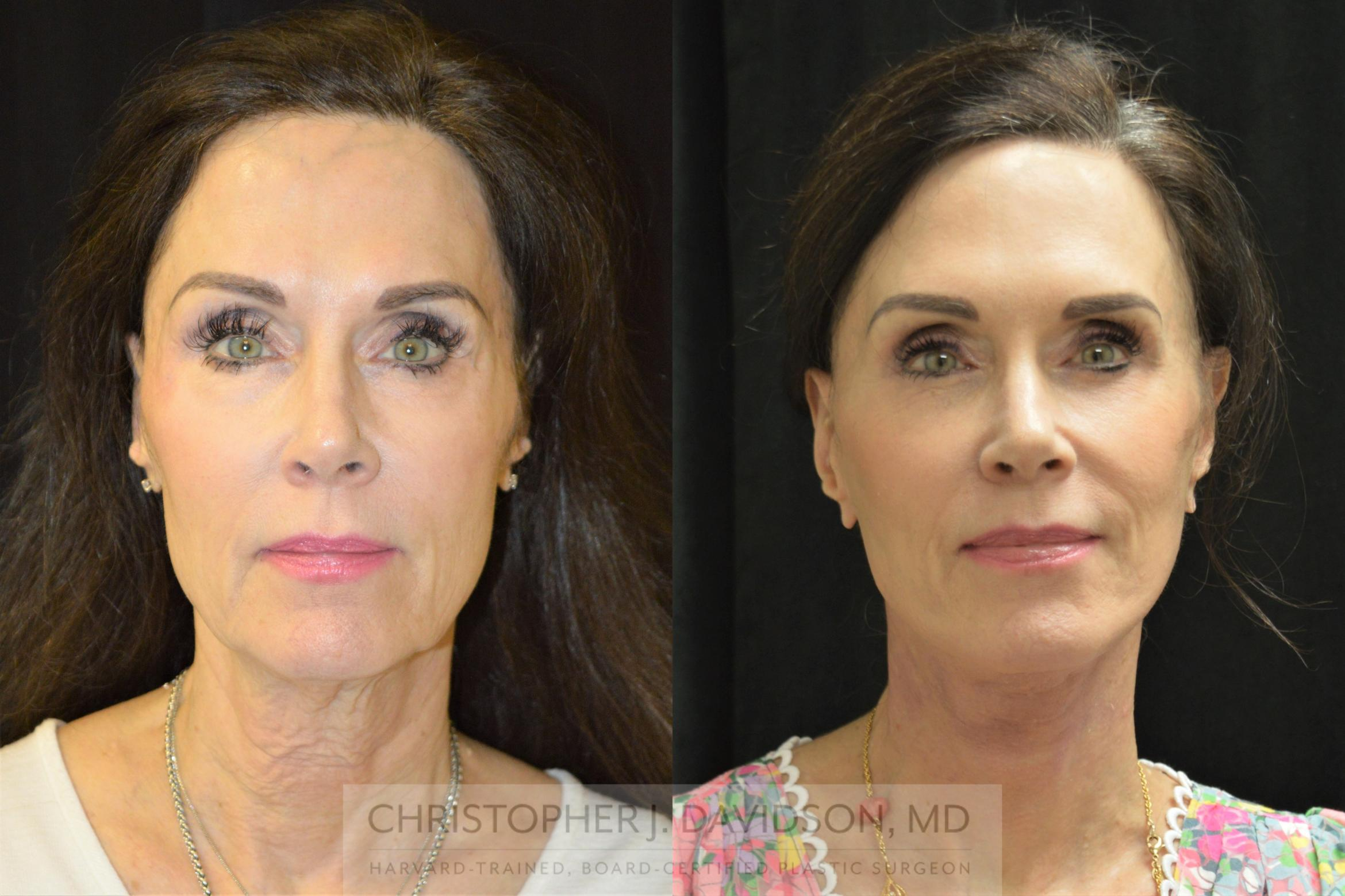 Facelift Surgery Case 252 Before & After Front | Boston, MA | Christopher J. Davidson, MD