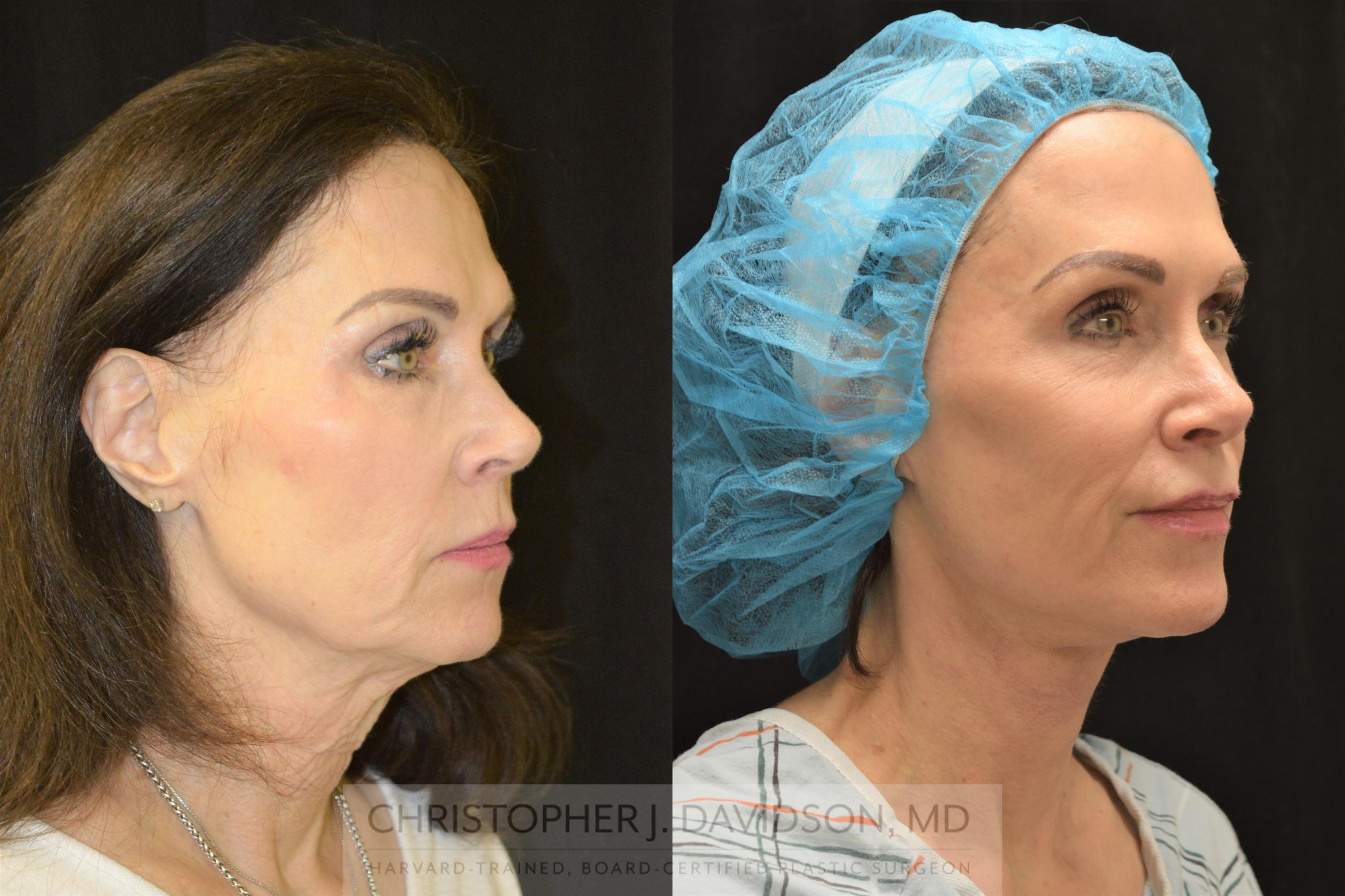 Facelift Surgery Case 252 Before & After Right Oblique | Boston, MA | Christopher J. Davidson, MD