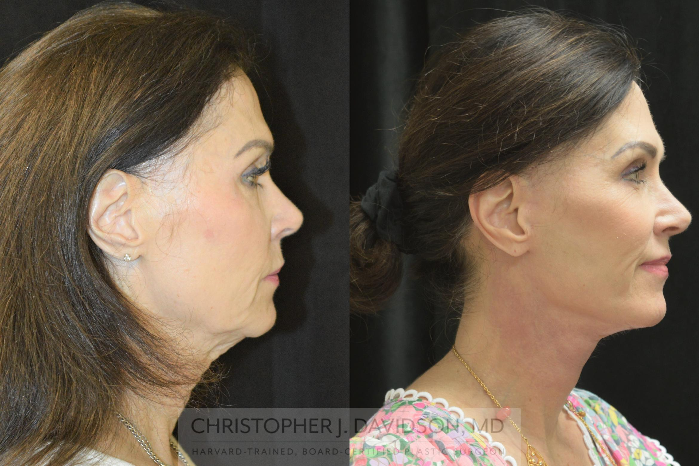 Facelift Surgery Case 252 Before & After Right Side | Boston, MA | Christopher J. Davidson, MD