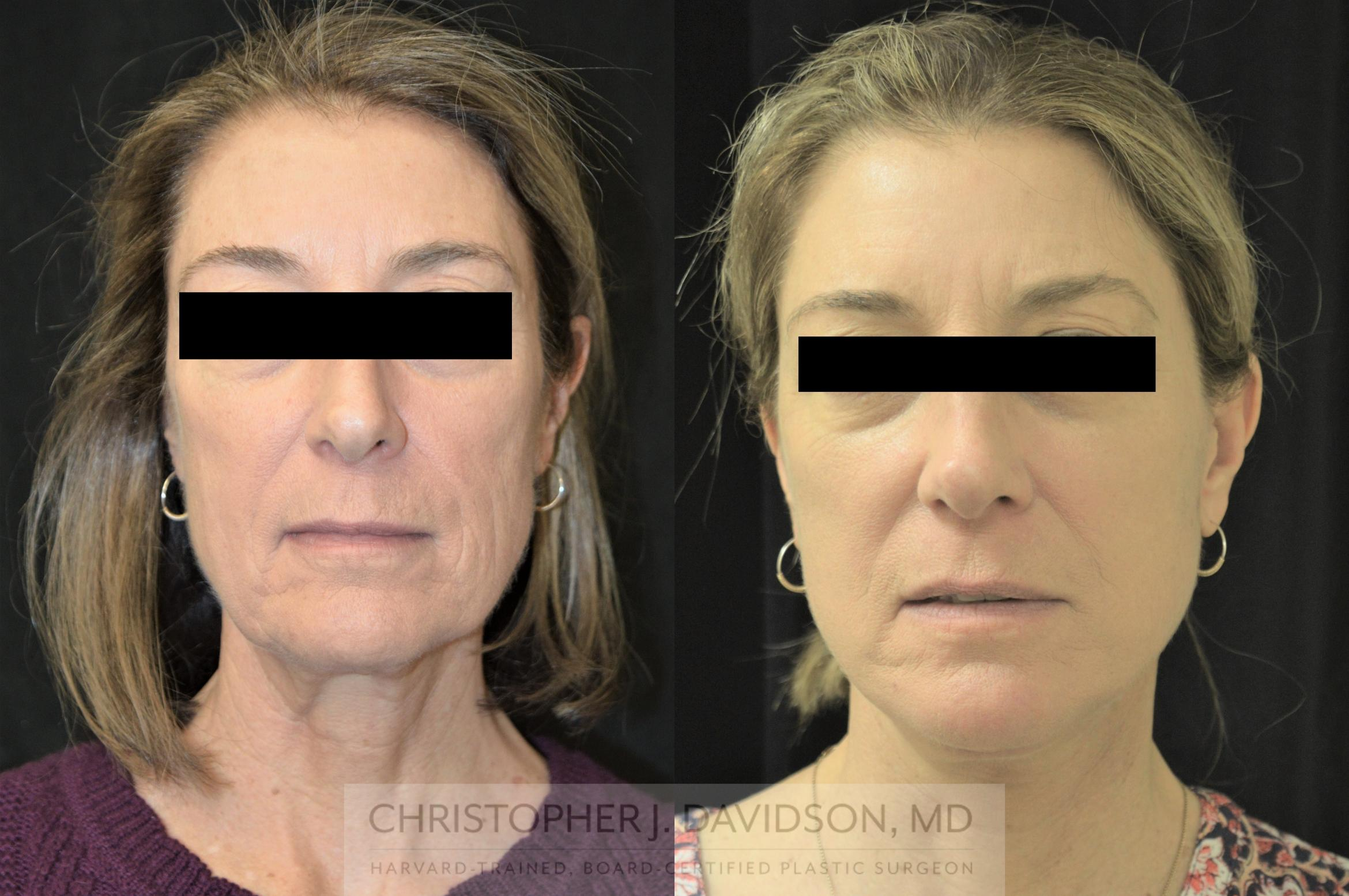 Facelift Surgery Case 254 Before & After Front | Boston, MA | Christopher J. Davidson, MD