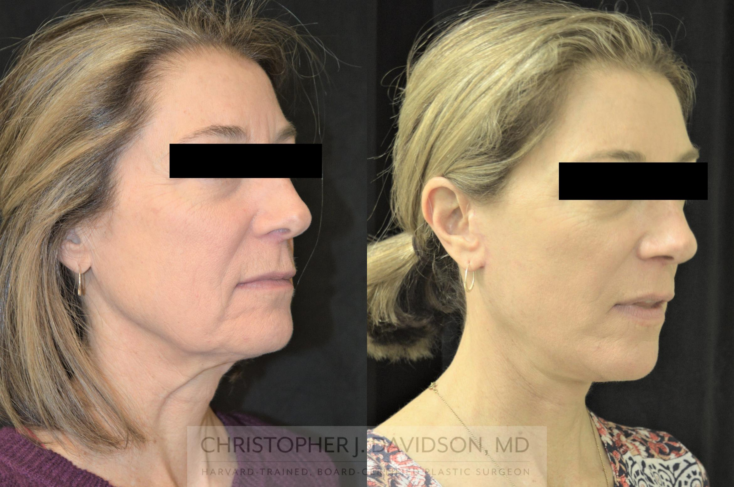 Facelift Surgery Case 254 Before & After Left Oblique | Boston, MA | Christopher J. Davidson, MD