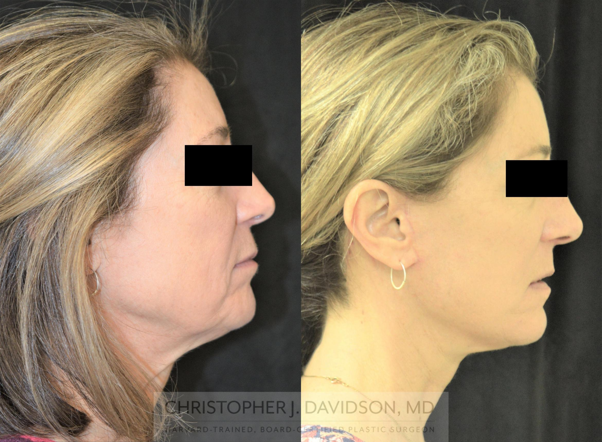 Facelift Surgery Case 254 Before & After Left Side | Boston, MA | Christopher J. Davidson, MD