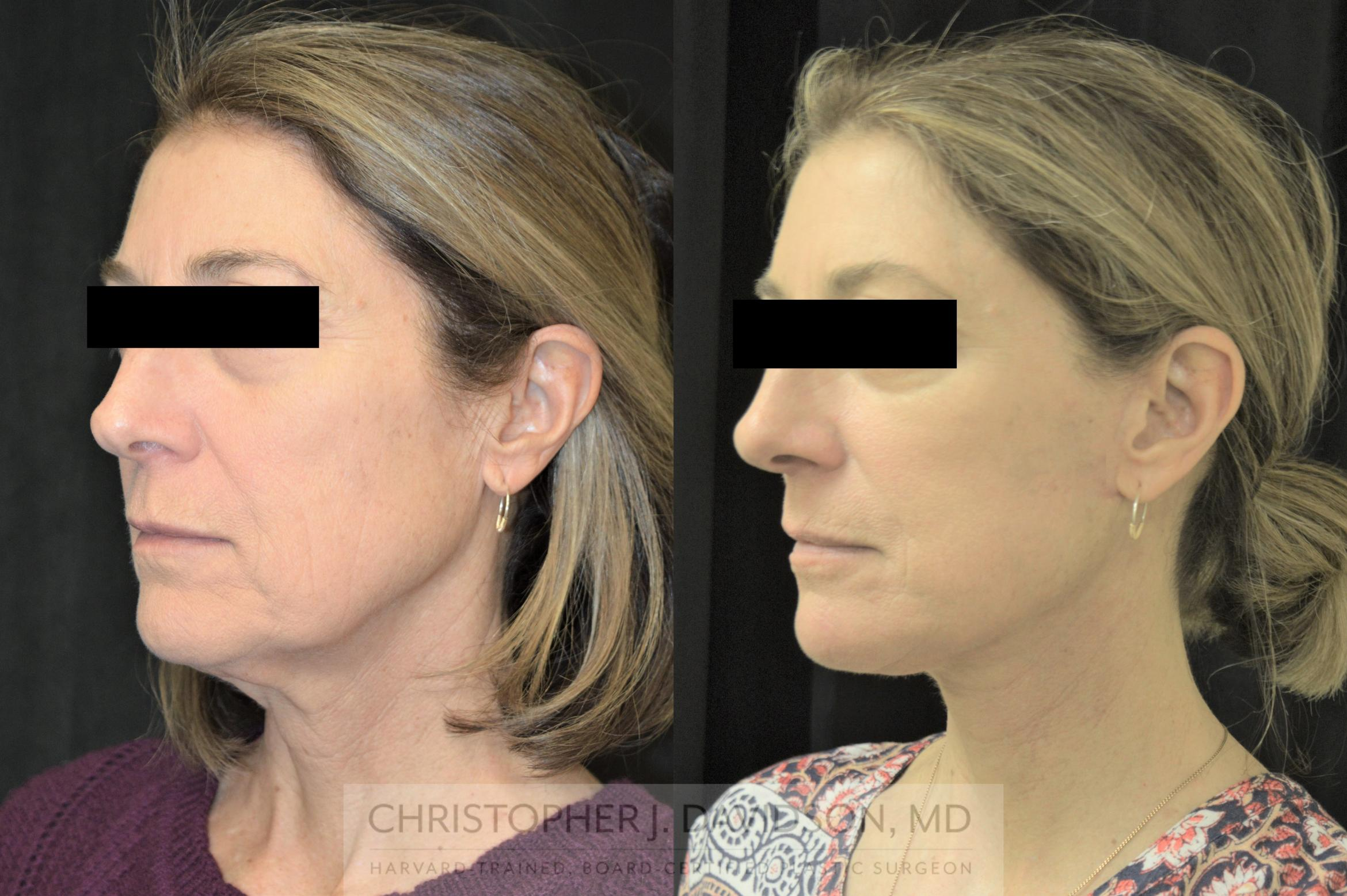 Facelift Surgery Case 254 Before & After Right Oblique | Boston, MA | Christopher J. Davidson, MD