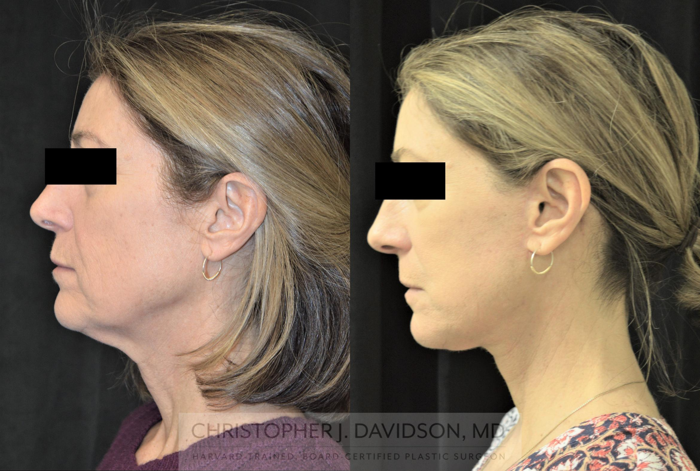 Facelift Surgery Case 254 Before & After Right Side | Boston, MA | Christopher J. Davidson, MD