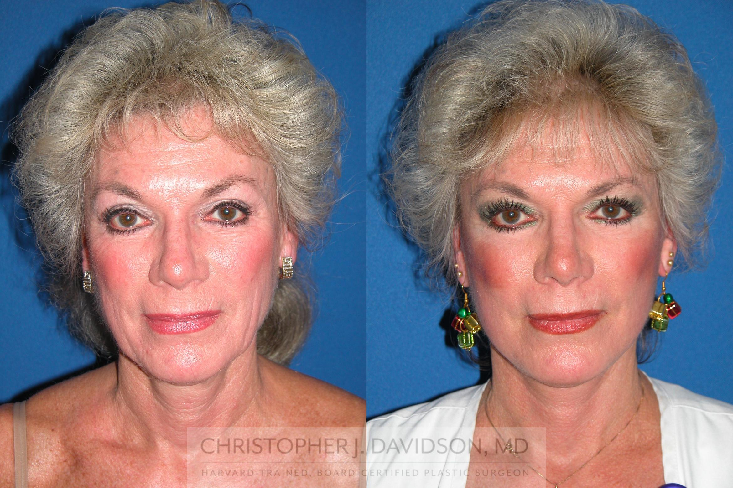 Facelift Surgery Case 7 Before & After View #1 | Wellesley, MA | Christopher J. Davidson, MD