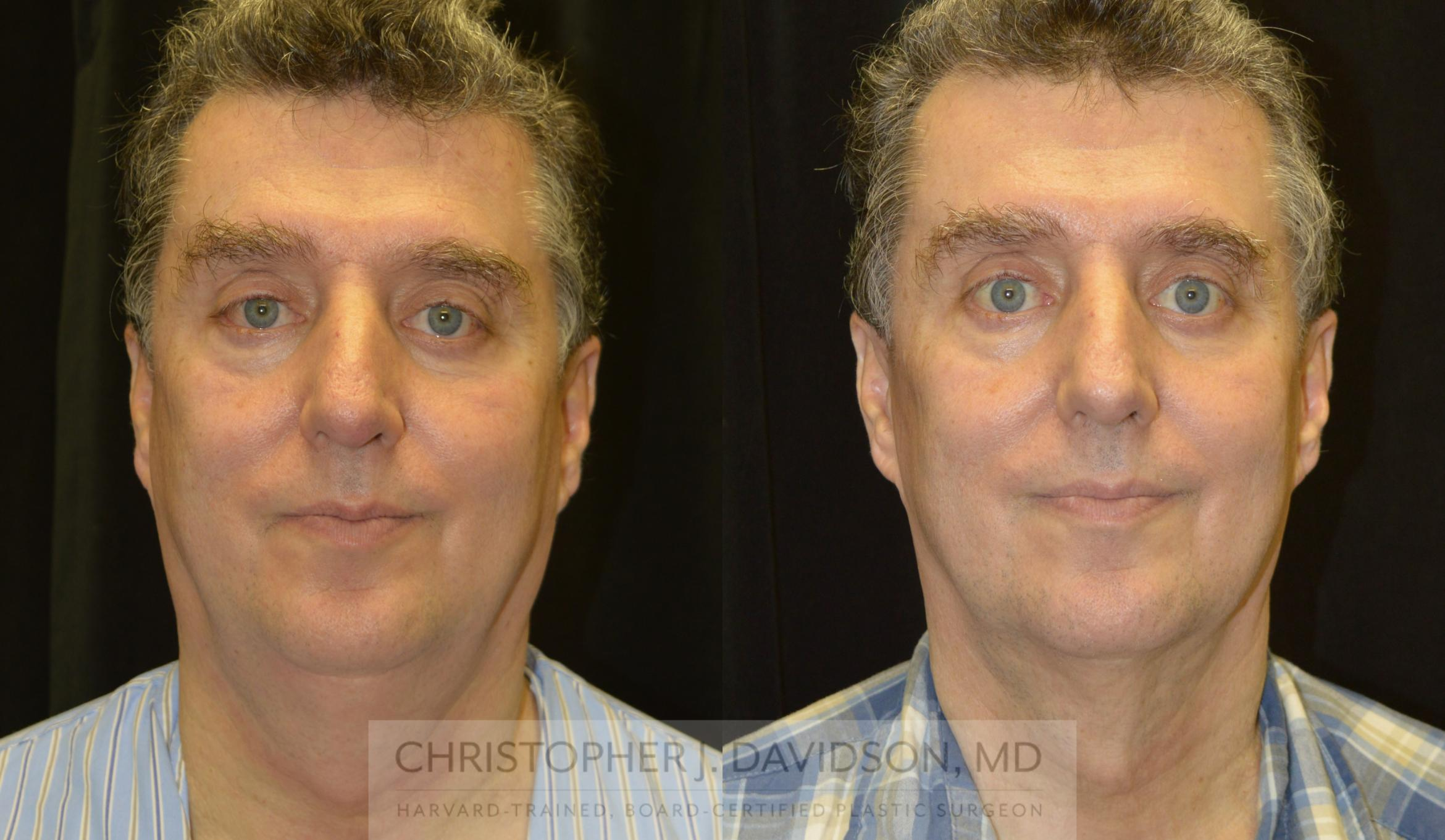 Kybella® for Double Chins Case 140 Before & After View #1 | Wellesley, MA | Christopher J. Davidson, MD