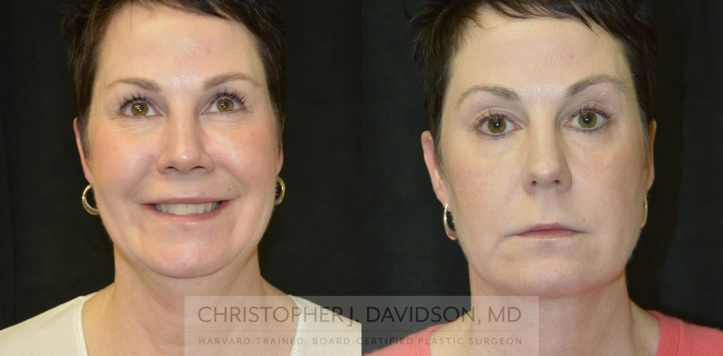 Kybella® for Double Chins Case 213 Before & After View #1 | Wellesley, MA | Christopher J. Davidson, MD