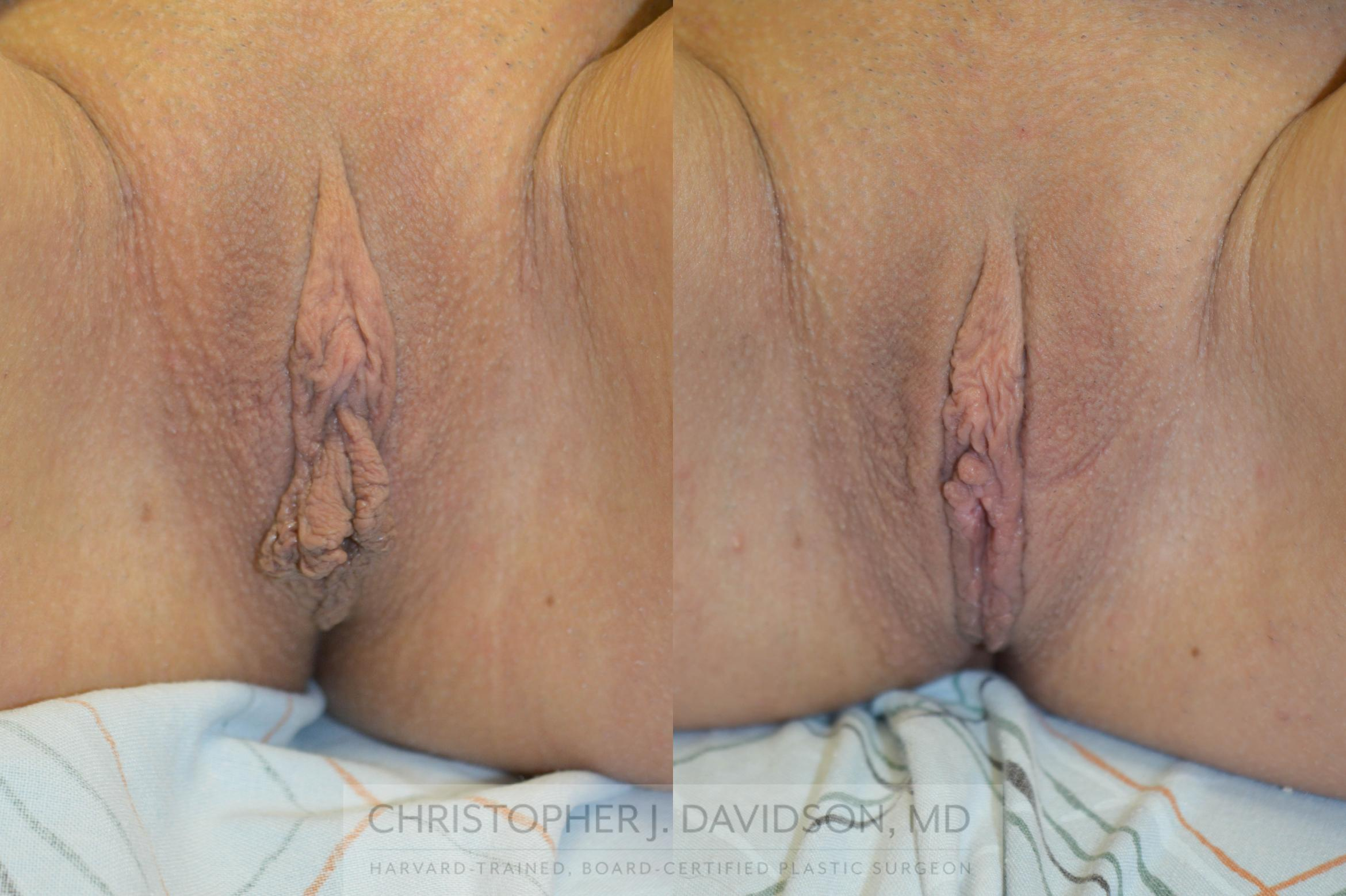 Labiaplasty Case 58 Before & After View #1 | Wellesley, MA | Christopher J. Davidson, MD