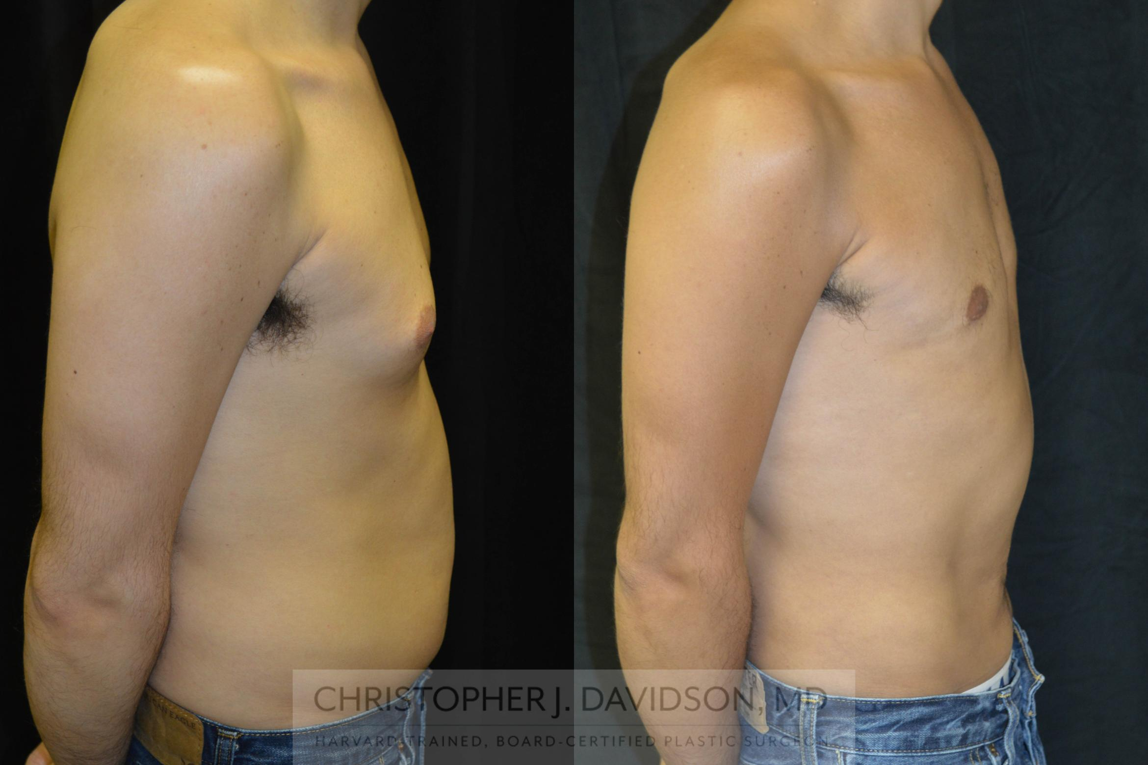 Liposuction Case 71 Before & After View #1 | Wellesley, MA | Christopher J. Davidson, MD