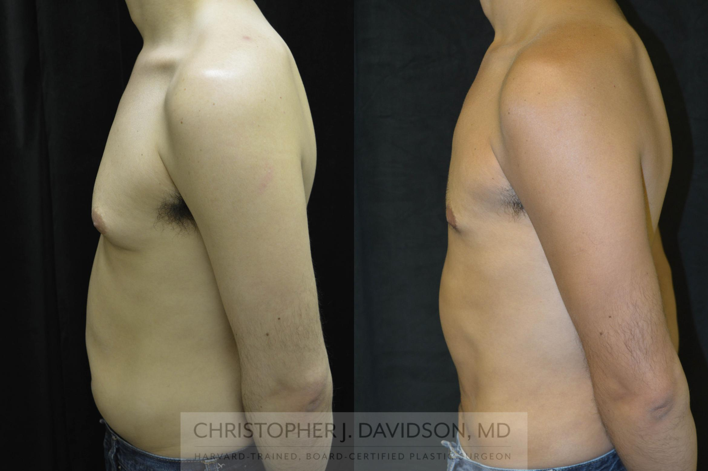Liposuction Case 71 Before & After View #2 | Wellesley, MA | Christopher J. Davidson, MD