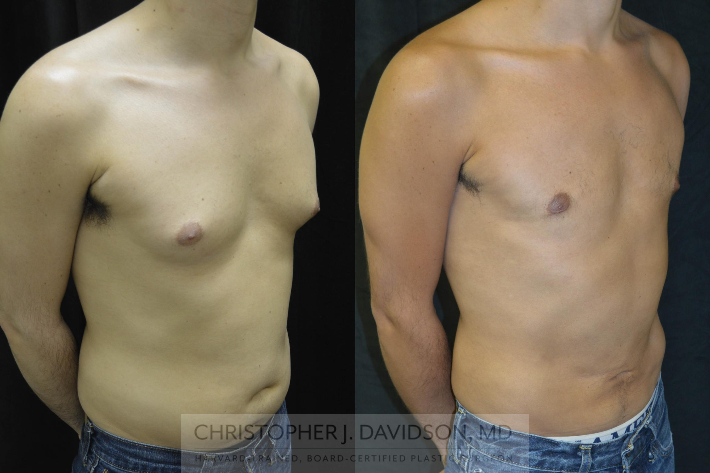 Liposuction Case 71 Before & After View #3 | Wellesley, MA | Christopher J. Davidson, MD