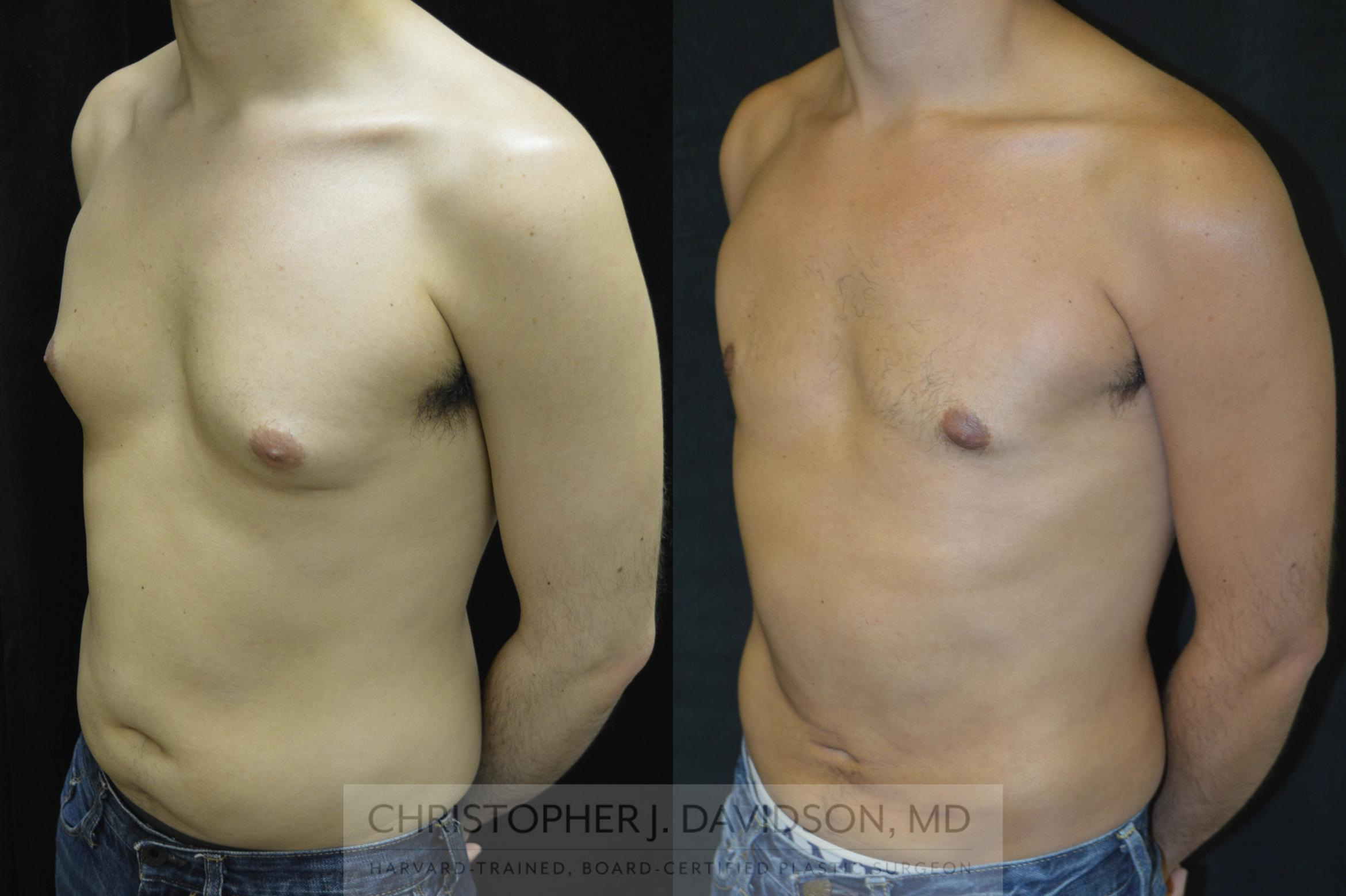 Liposuction Case 71 Before & After View #4 | Wellesley, MA | Christopher J. Davidson, MD